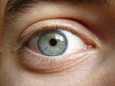 Eye Herpes Causes, Symptoms, Treatment - eMedicineHealth