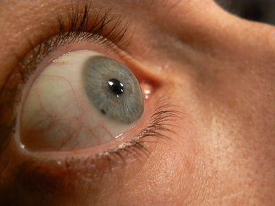 List Of Hereditary Eye Diseases | LIVESTRONG.