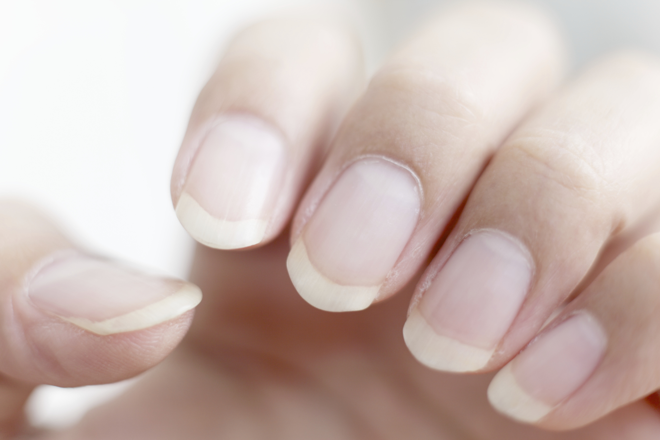 Are Ridged Nails and Dry Skin a Sign of Vitamin Deficiency ...