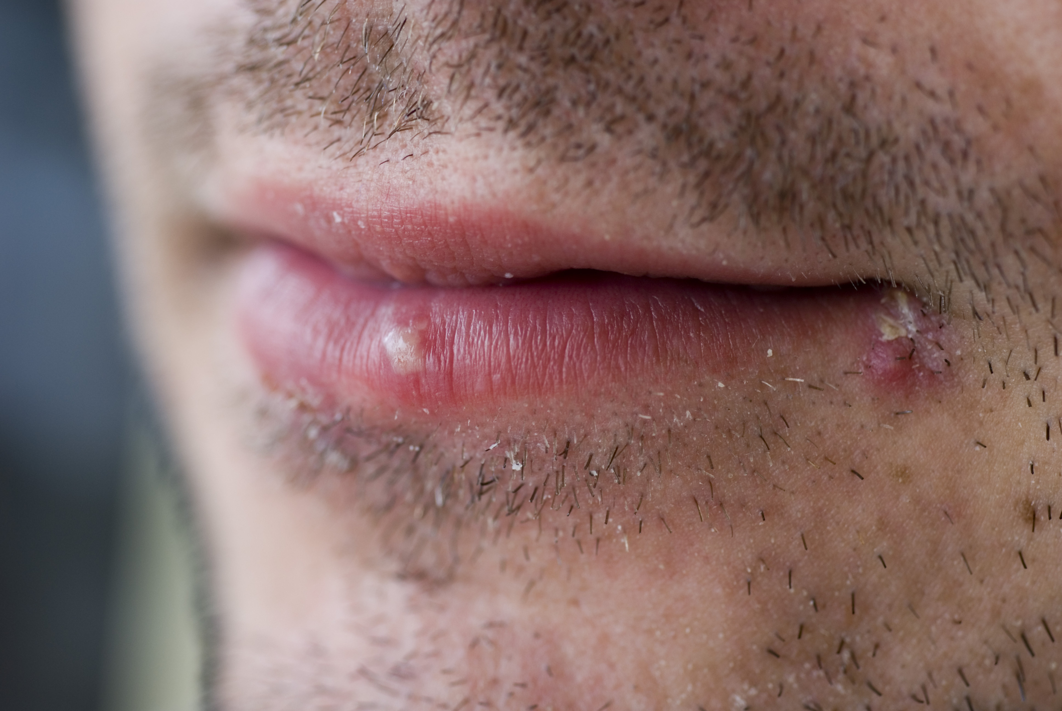 From herpes on the lips pills - which is better 56