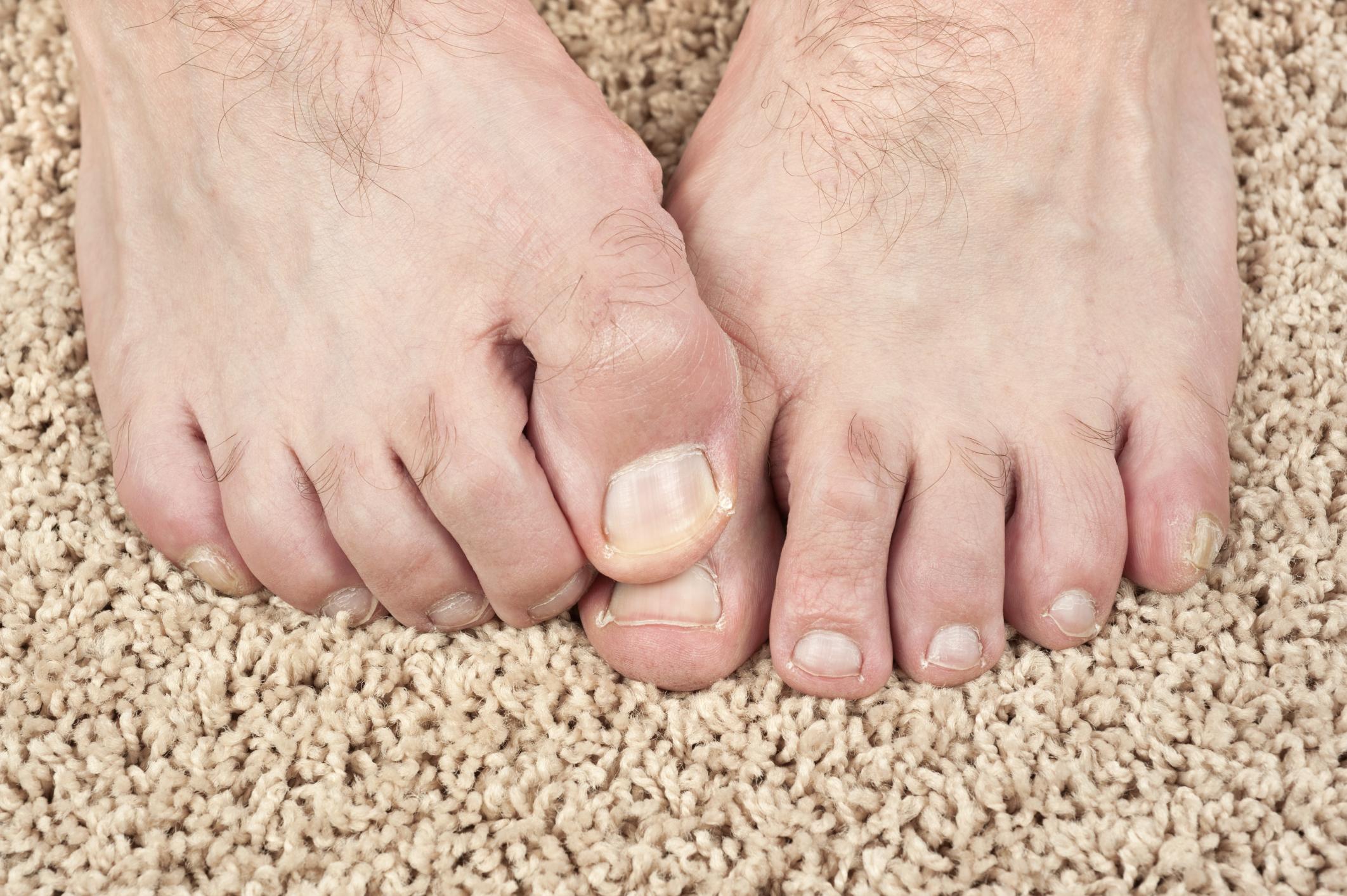 Would a Vitamin Deficiency Cause Split Toenails?   LIVESTRONG.COM