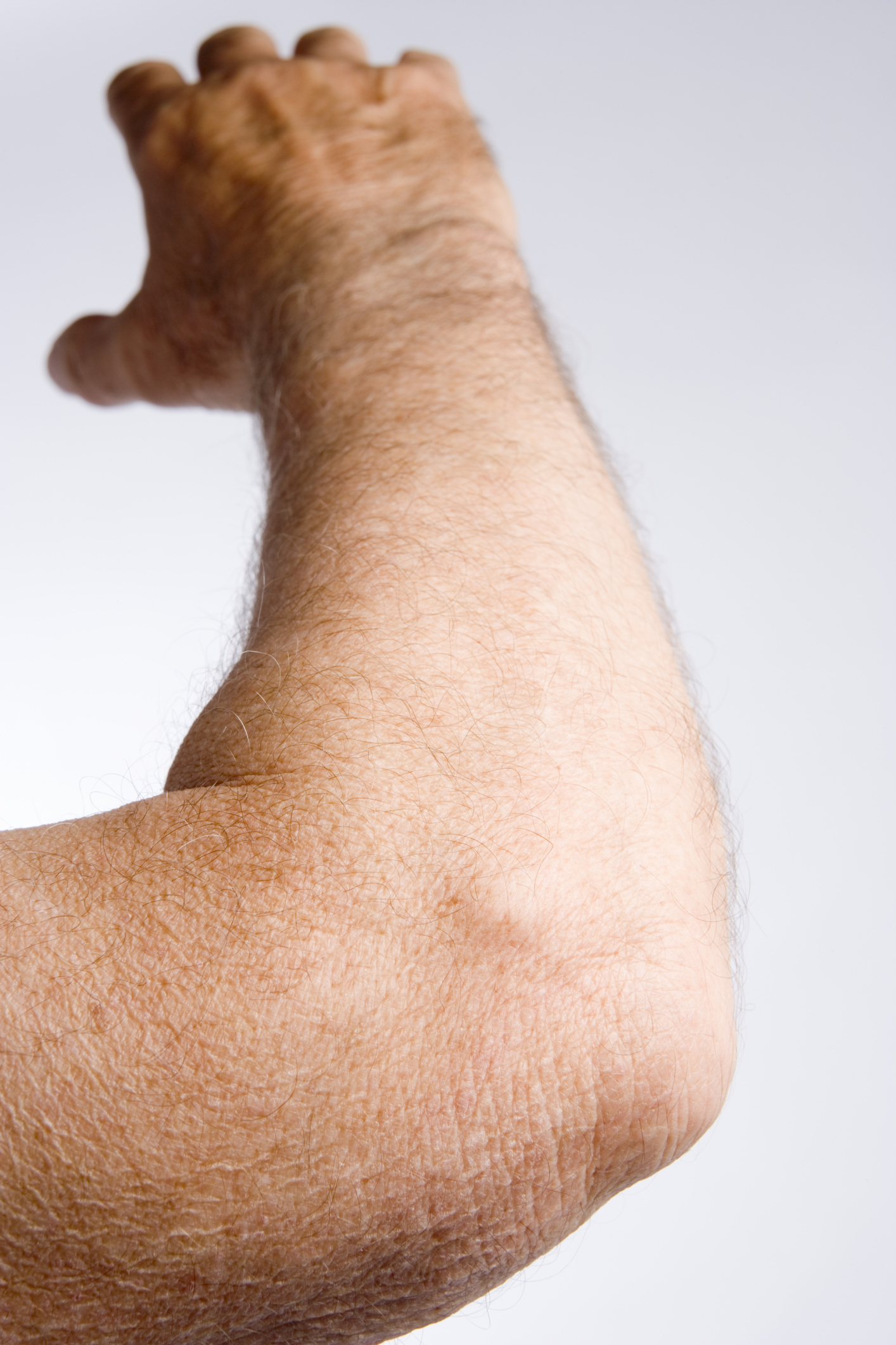 Elbow Skin Pain Livestrong