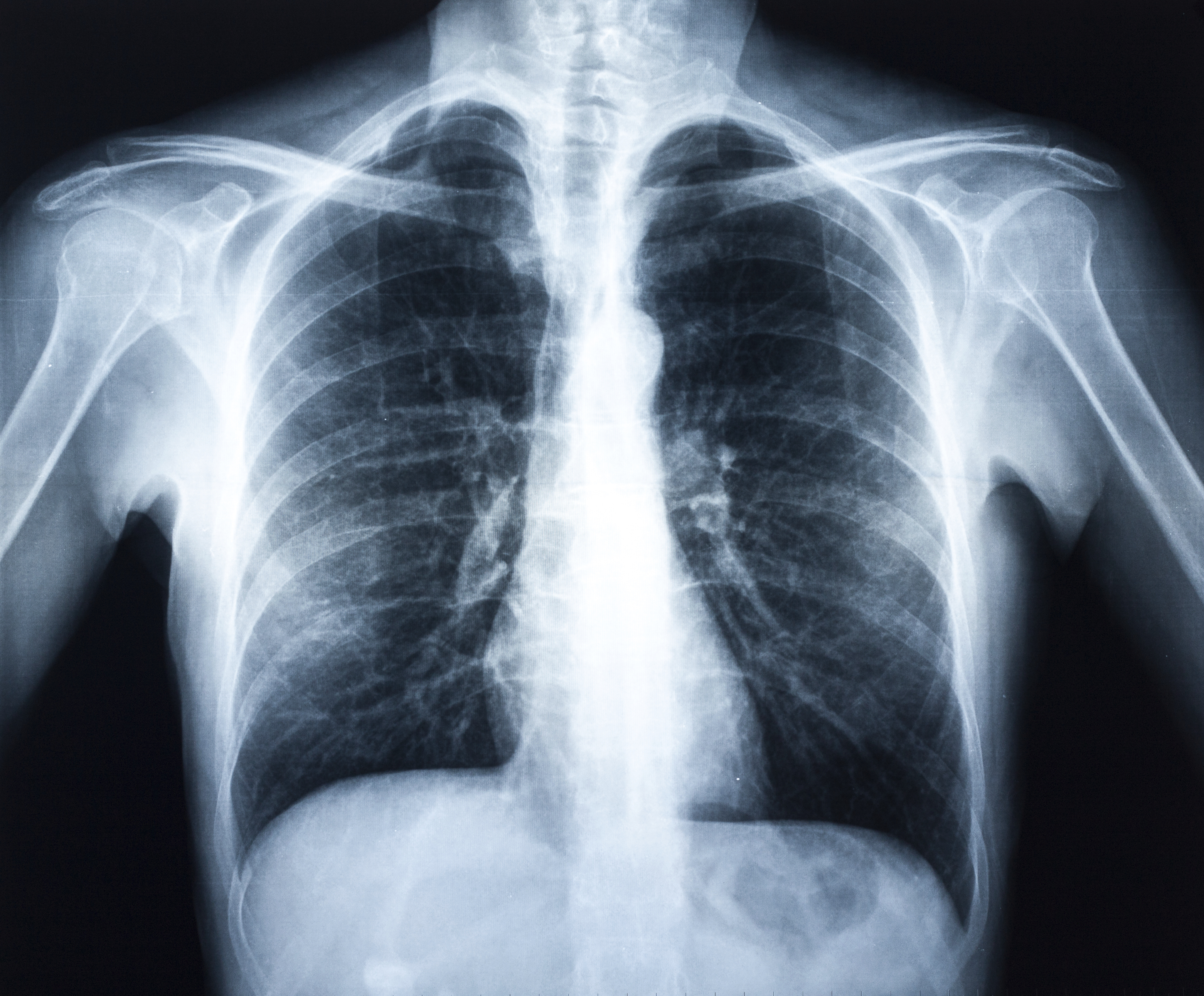 Difference Between Pulled Muscles and Bruised Ribs | LIVESTRONG.COM