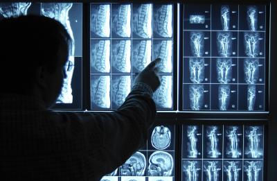 How long does it take to become a Neurosurgeon, and what is the process?