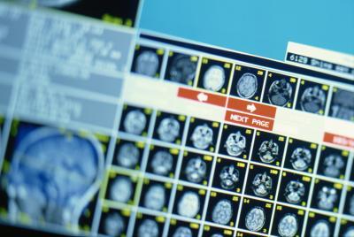 Job Description Of A Radiologic Technician Chron Com