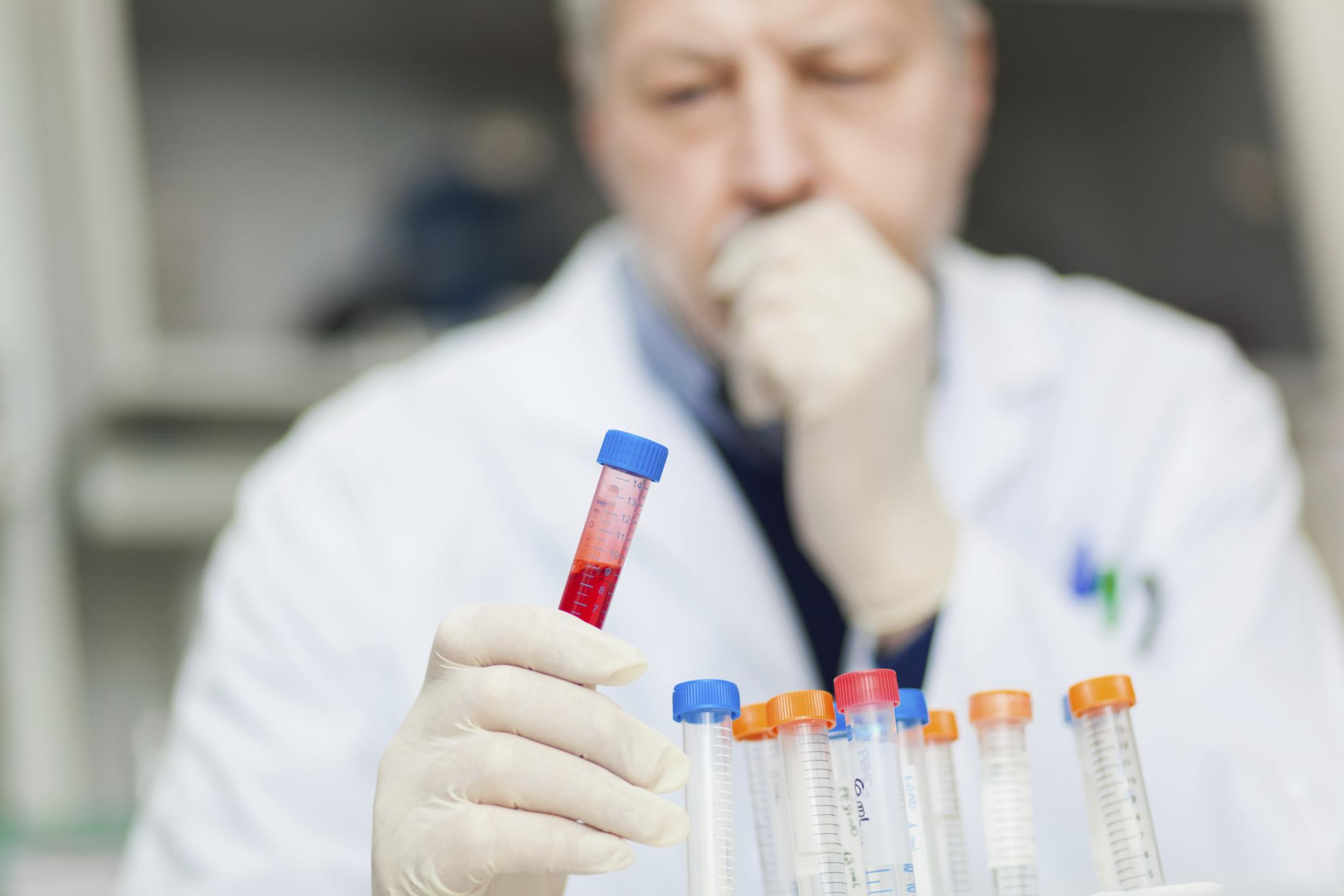 Symptoms Of Dilantin Toxicity Healthfully