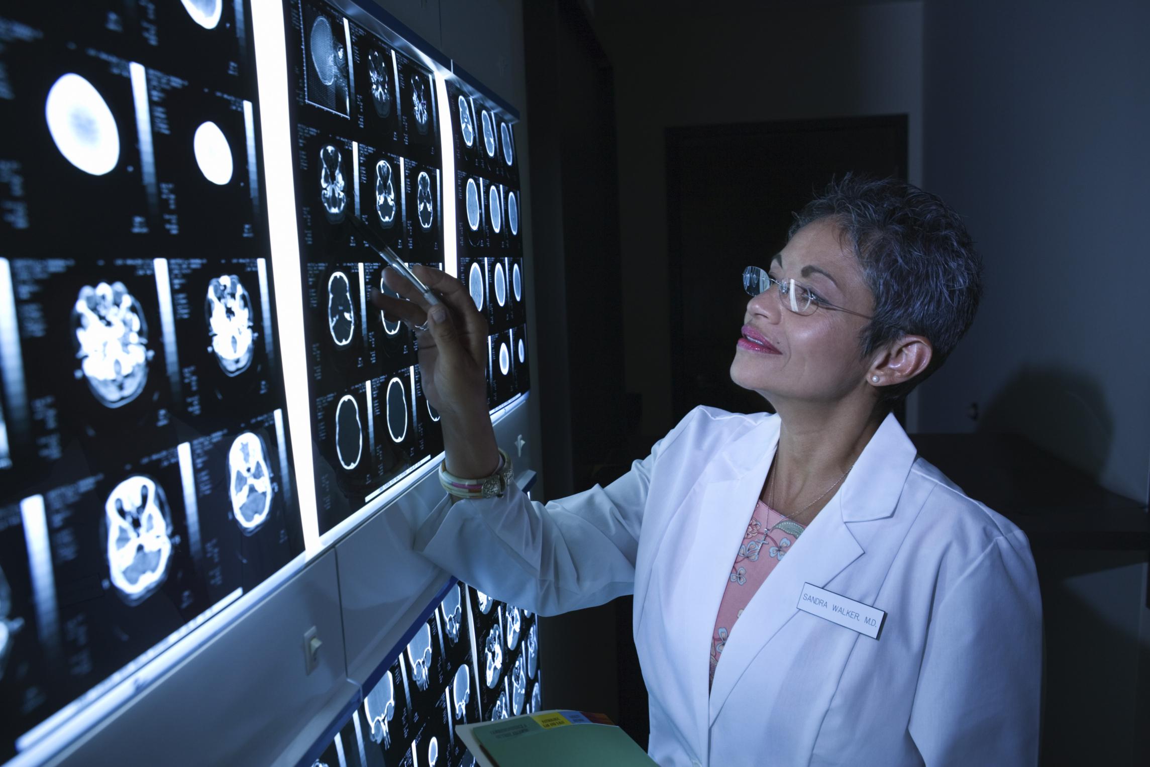 types of brain doctors