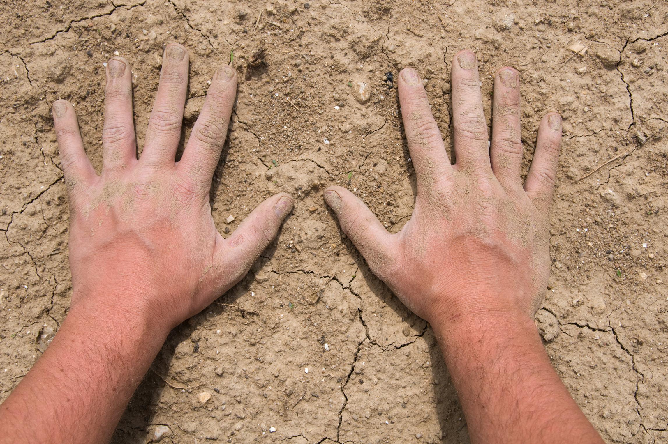 Сухая кожа рук: причины 65