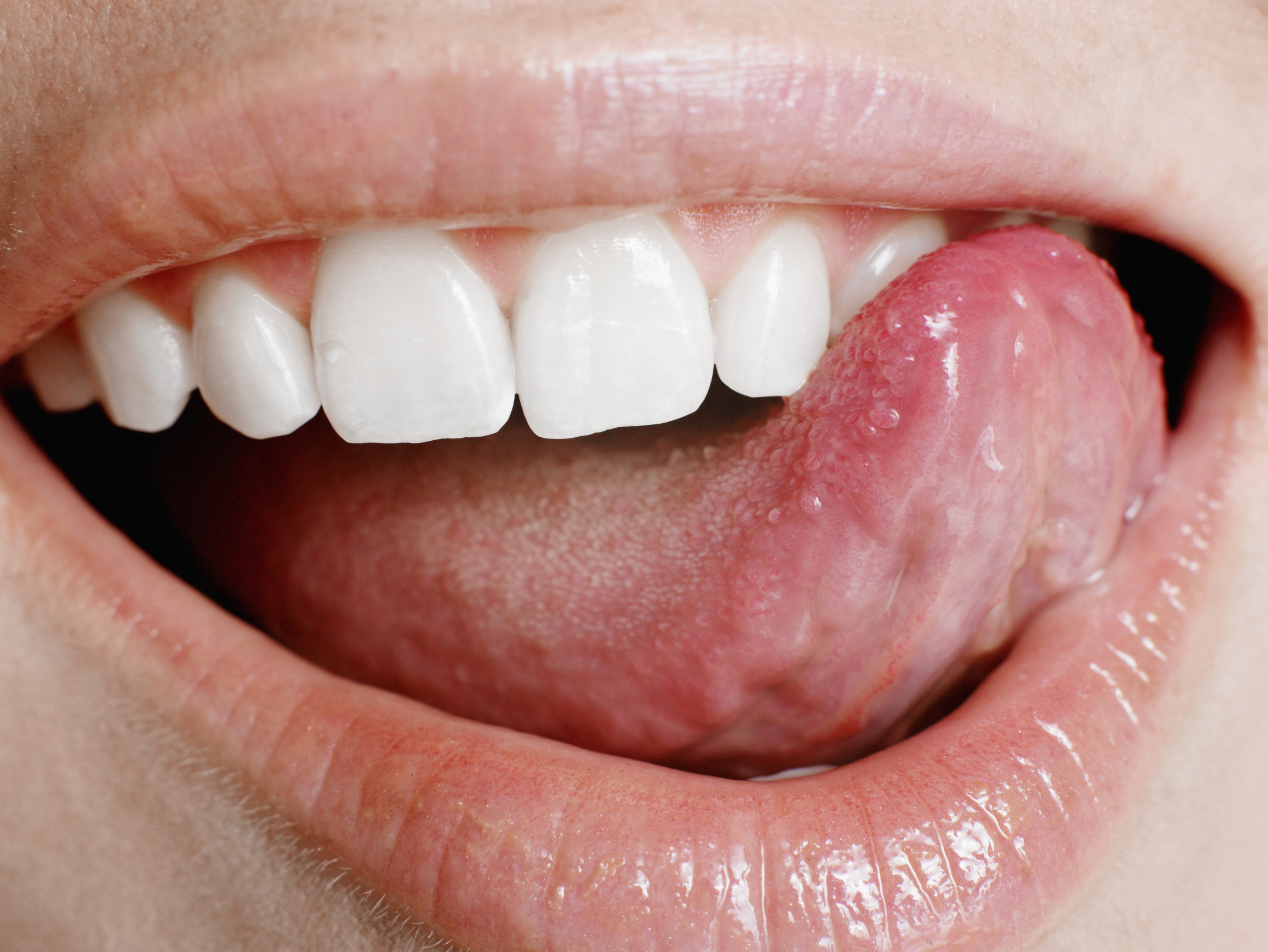 What Are The Causes Of Tongue Skin Tags Healthfully