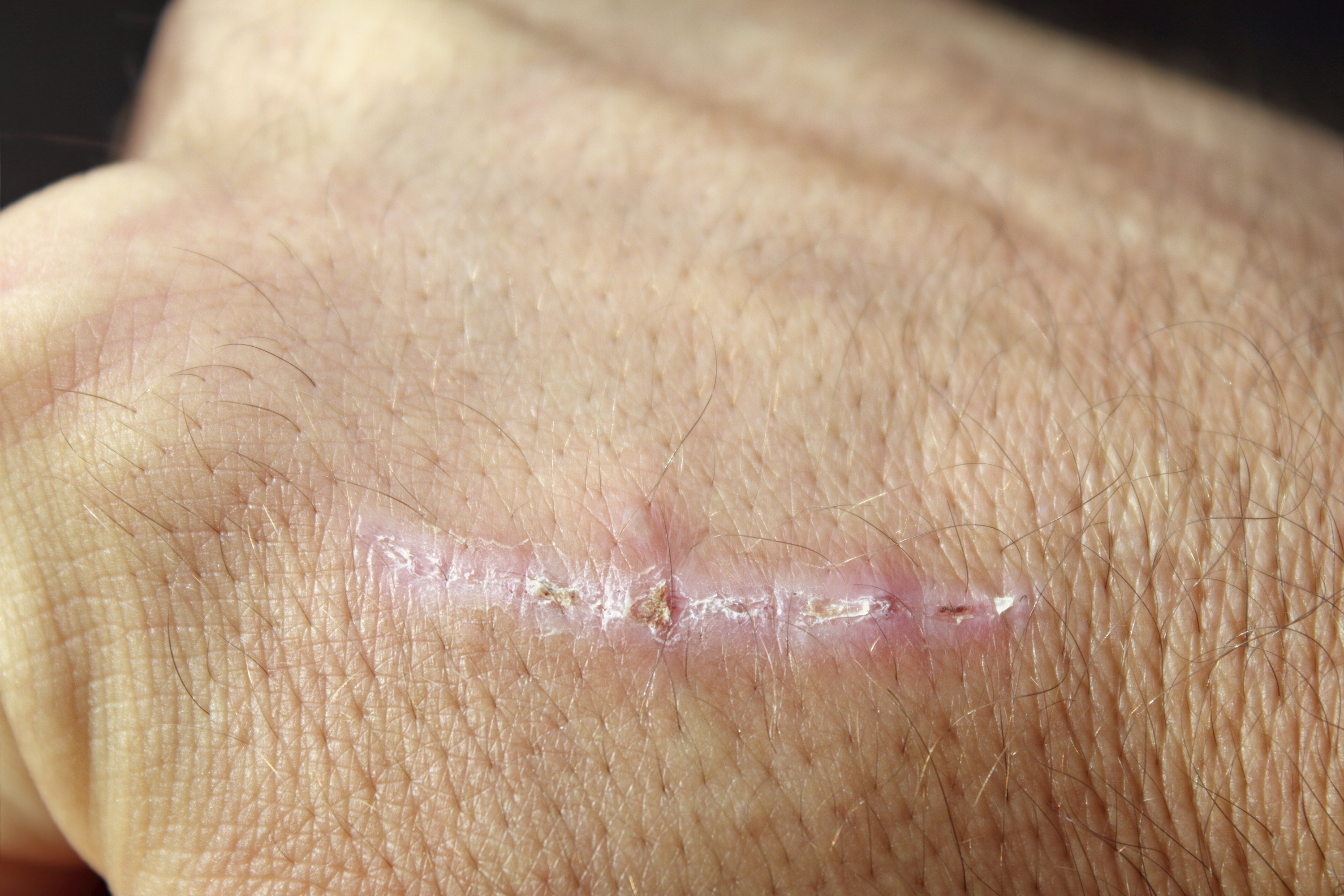 How to Remove Plantar Warts With Tweezers