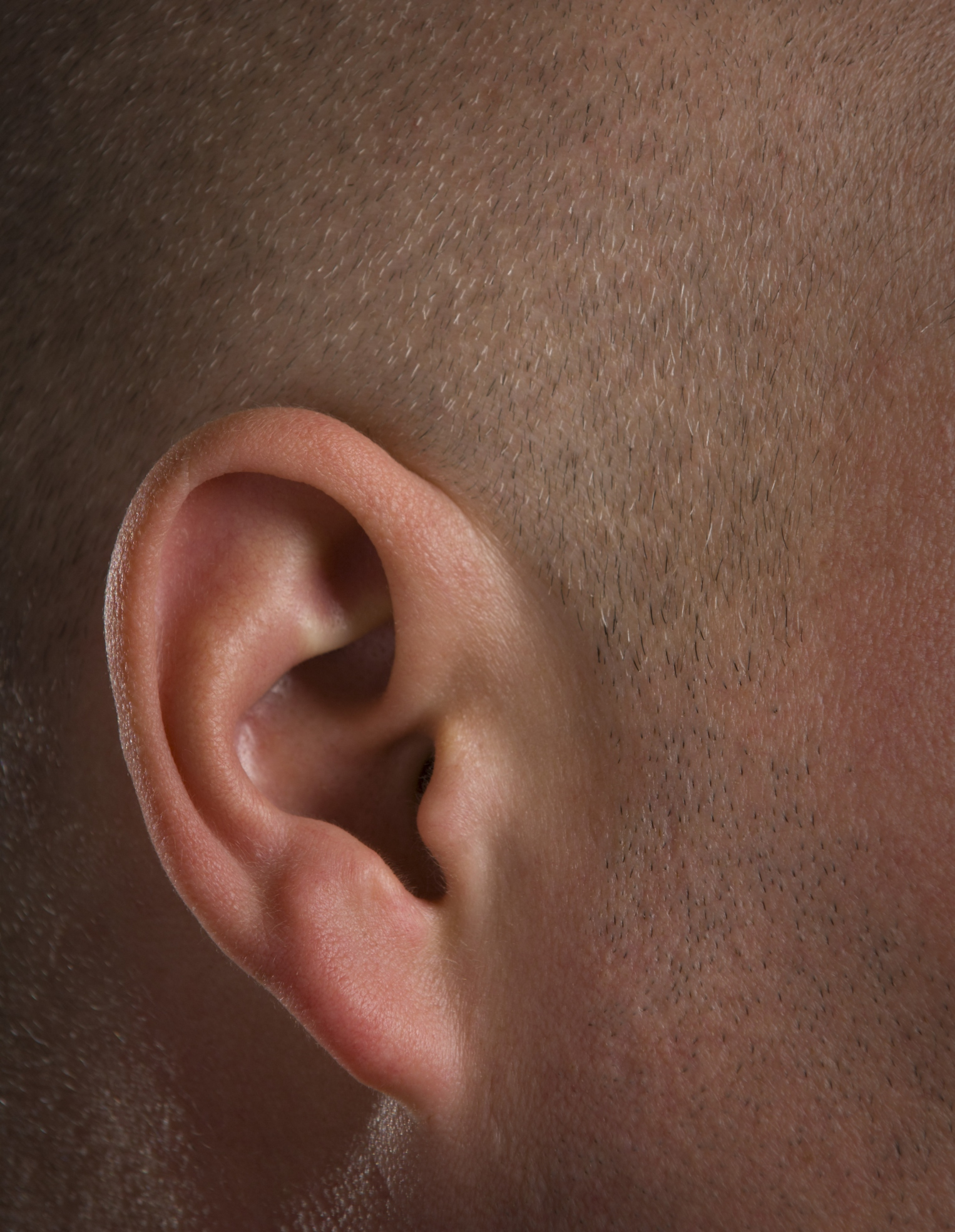 How Can I Remove the Cotton From a Q Tip Stuck in My Ear Canal?
