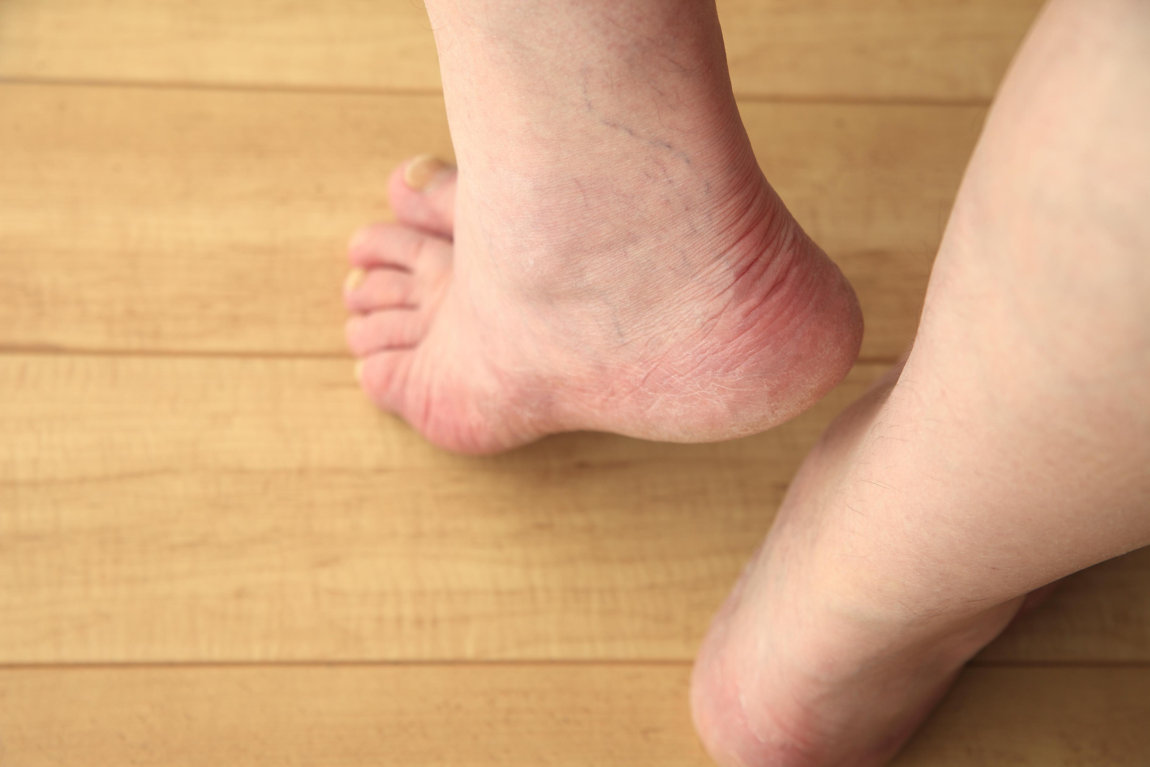 Symptoms of Bone Spur in the Foot