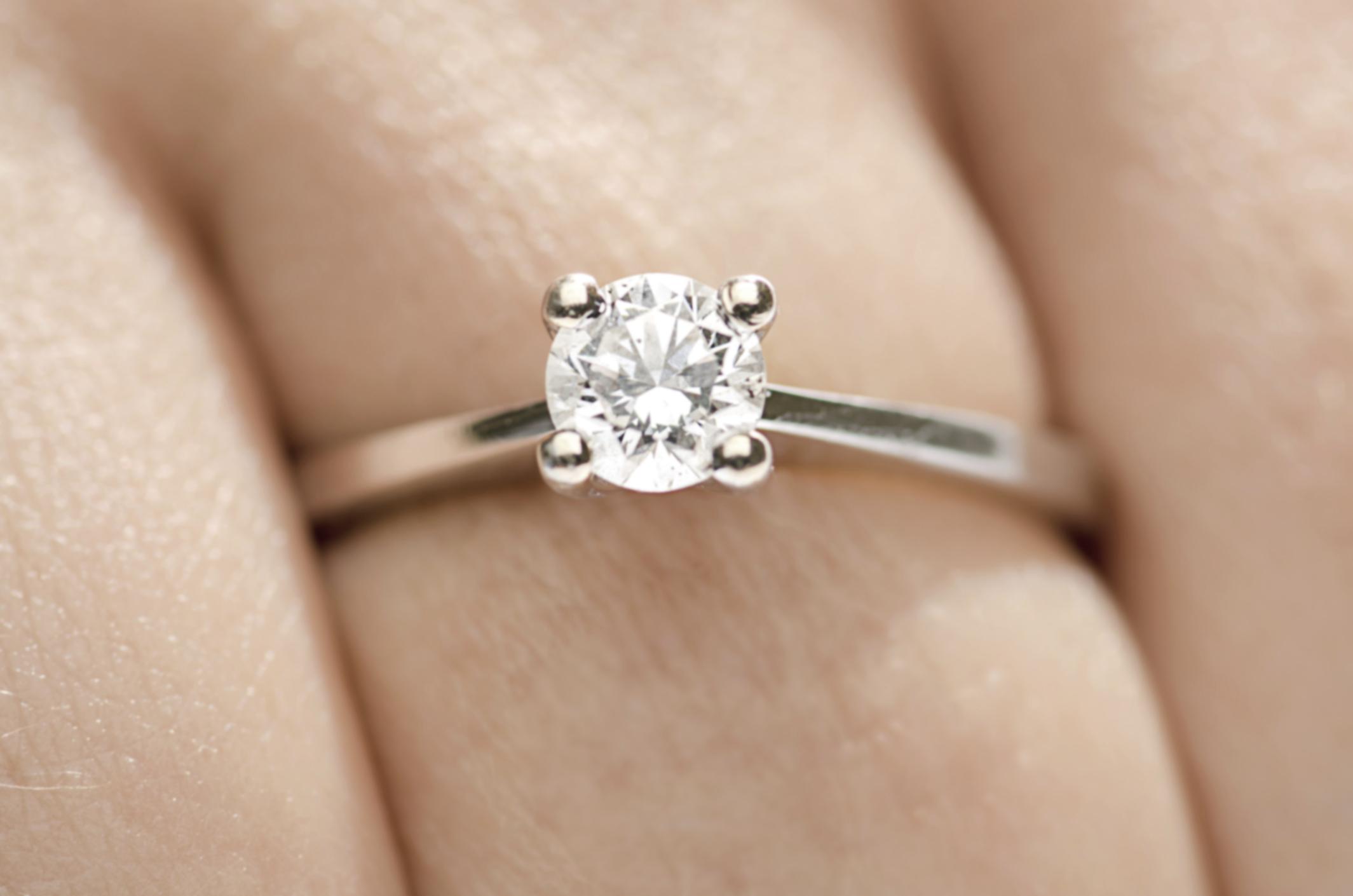 Allergic Reaction To Platinum On The Ring Finger