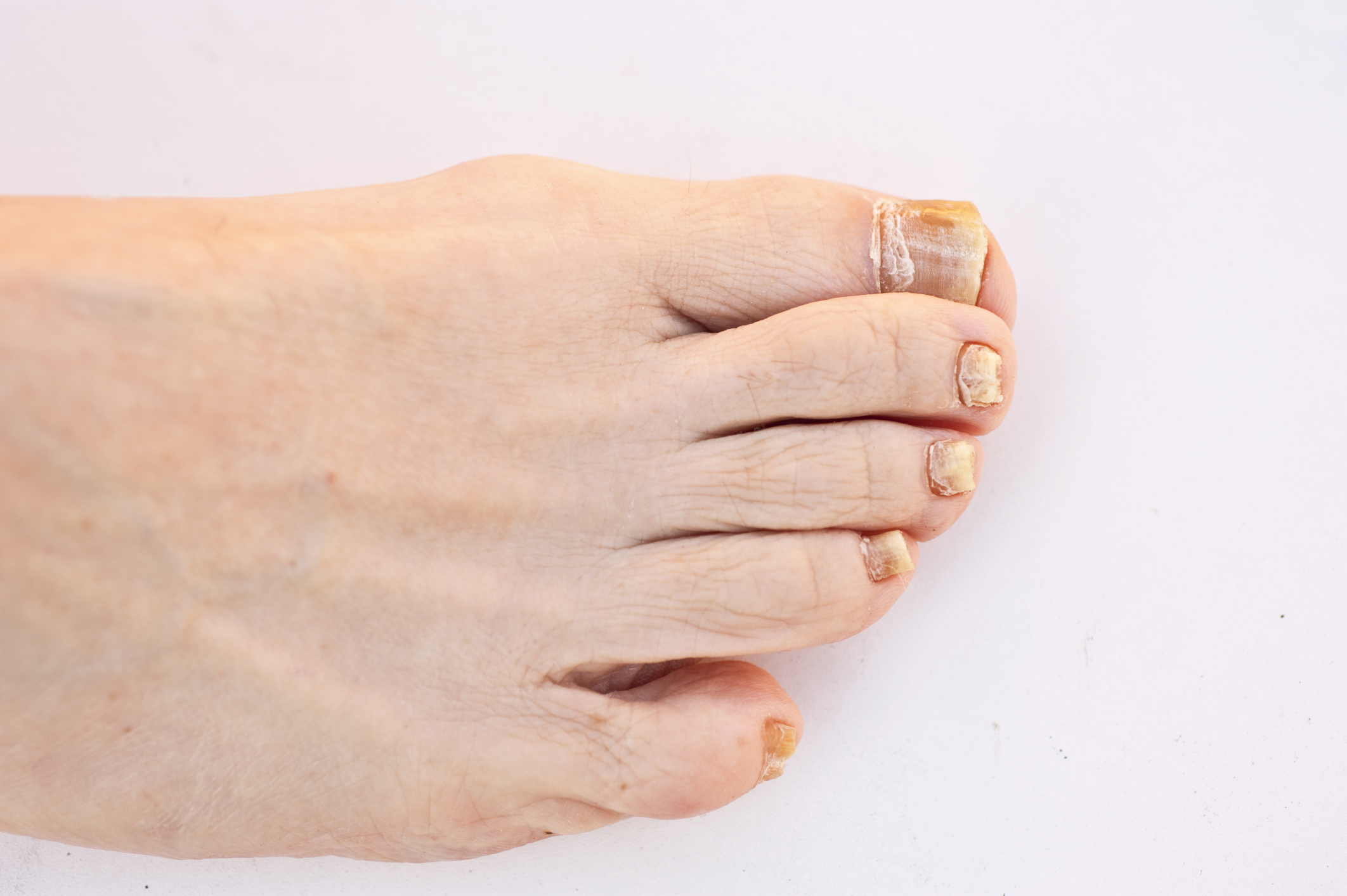 What Are the Causes of Toenail Discoloration? | LIVESTRONG.COM