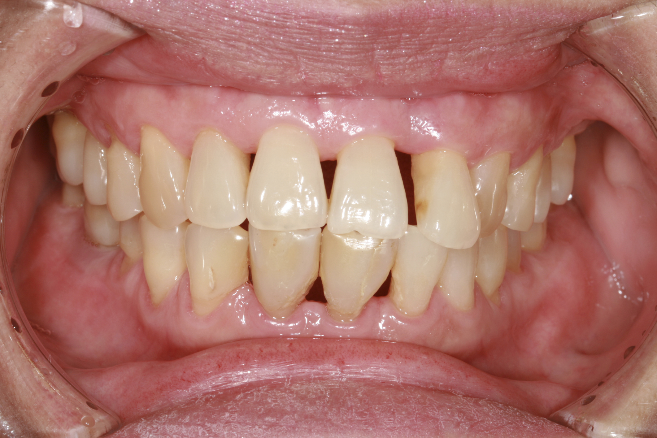Home Remedies For Getting Visibly Whiter Teeth Overnight Leaftv