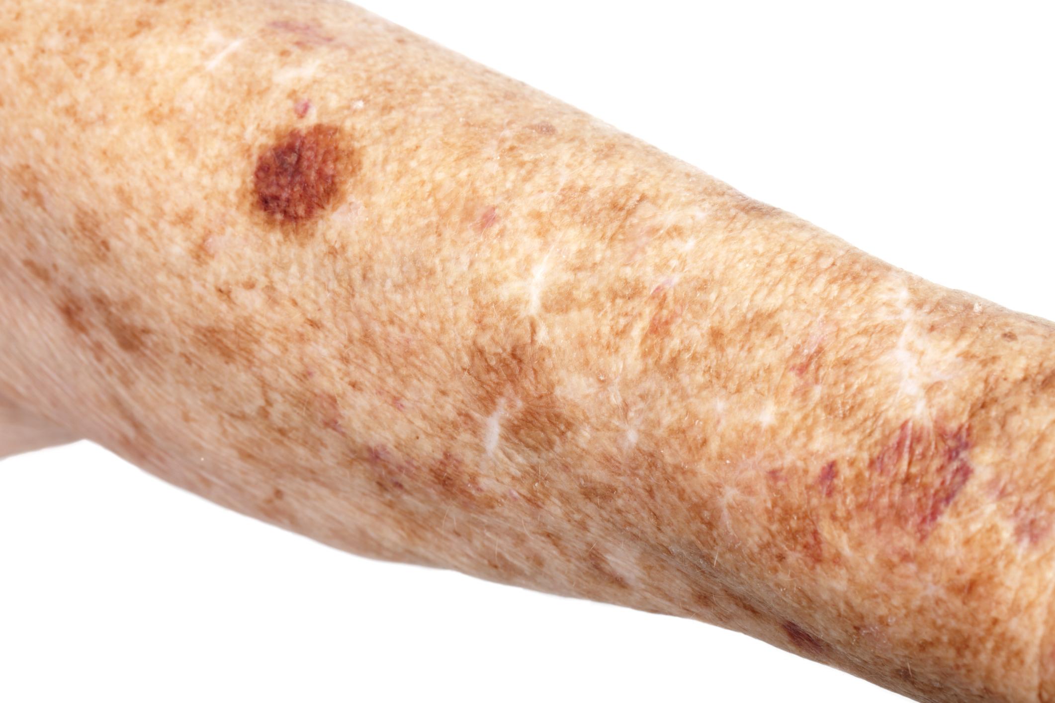 Natural Wart & Mole Remover