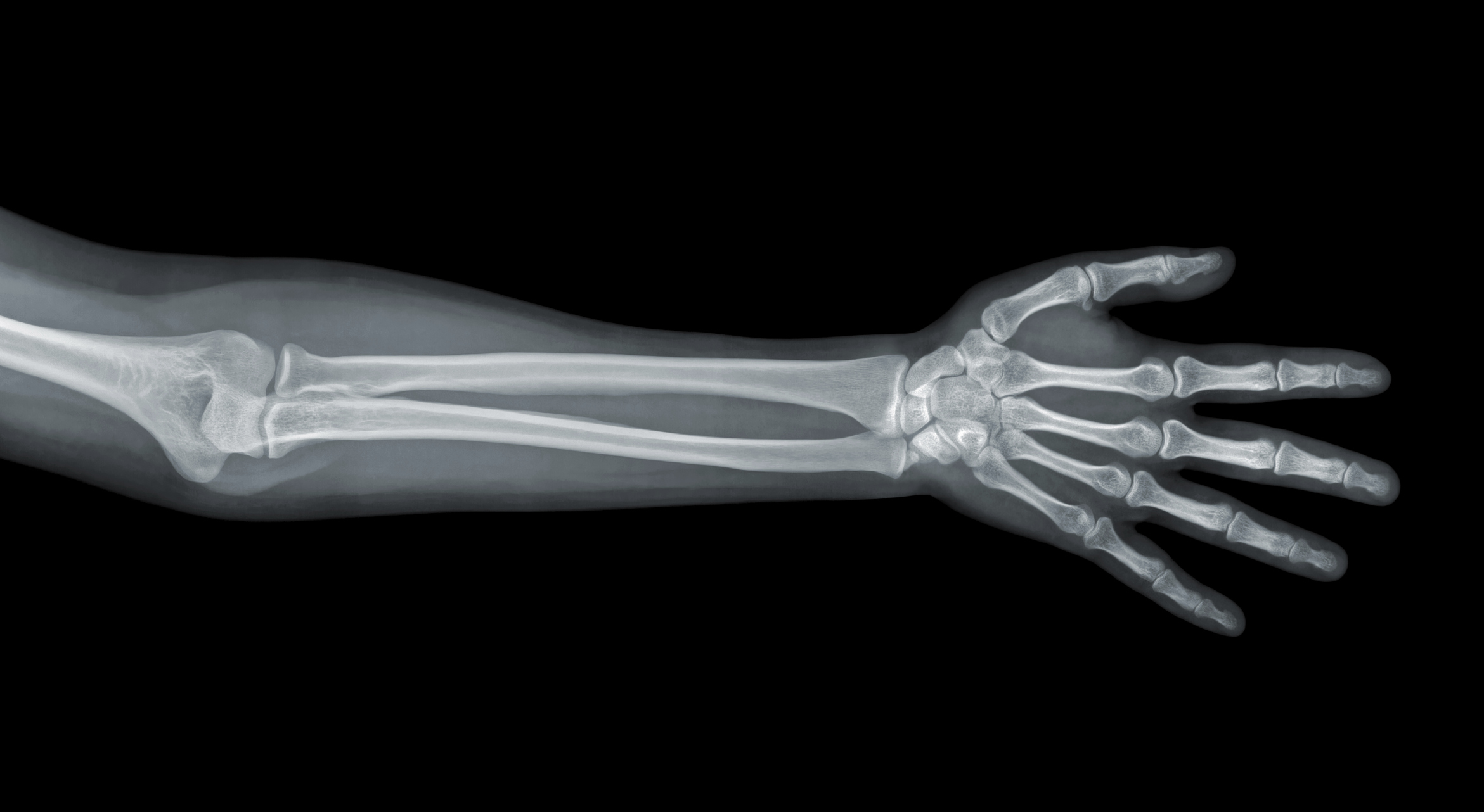 Names of the Bones in the Human Leg & Arm | LIVESTRONG.COM