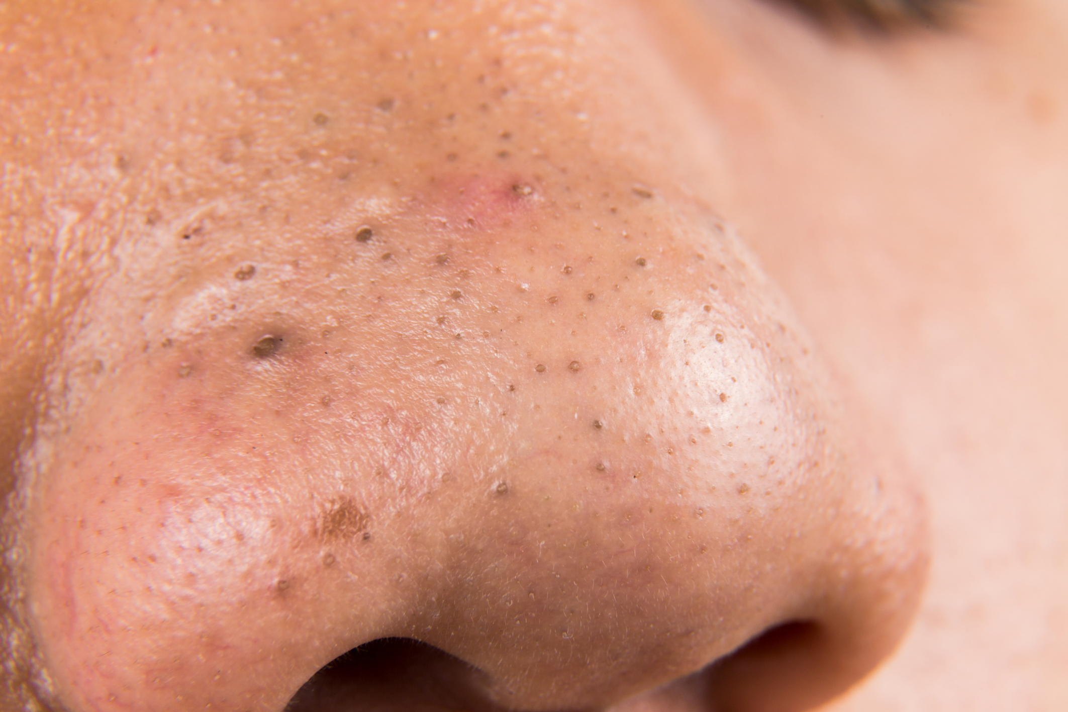 How to Remove Blackheads at Home