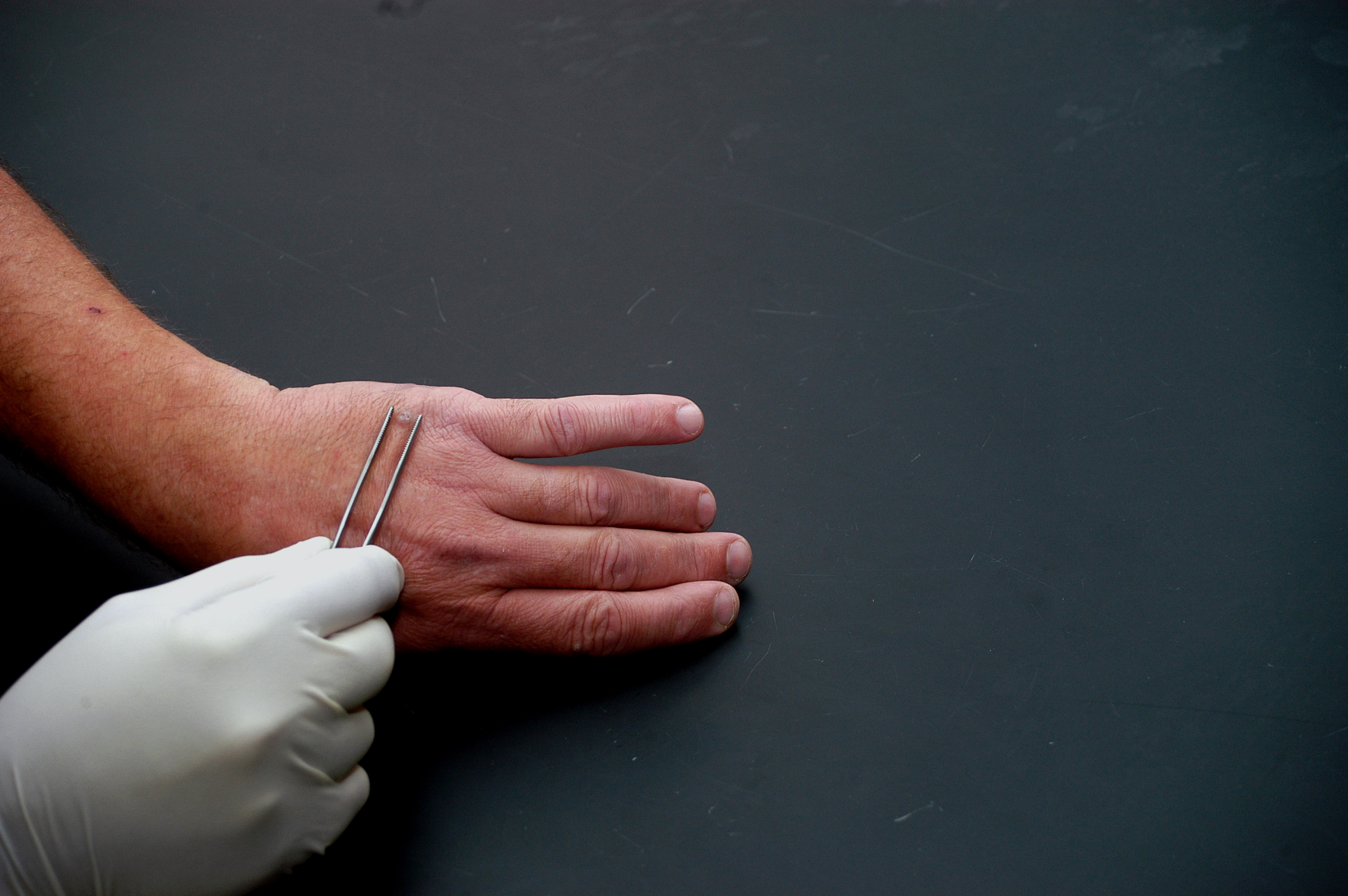 Vulgar warts on the hands, finger, face or foot - photo, treatment