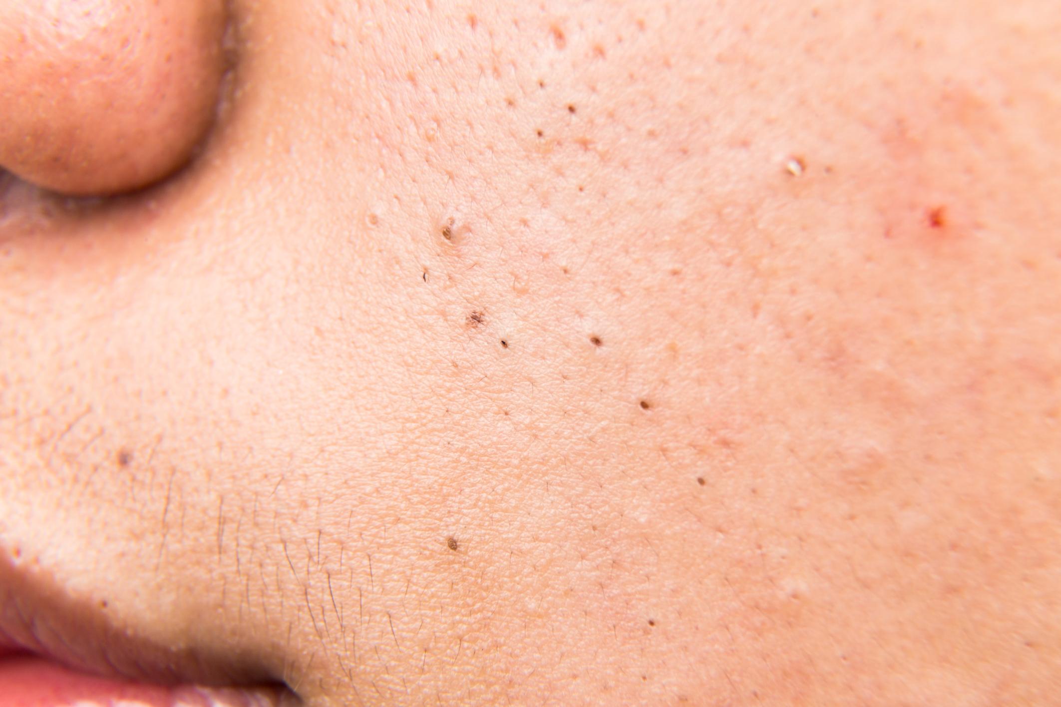 Keloids Vs  Pimples