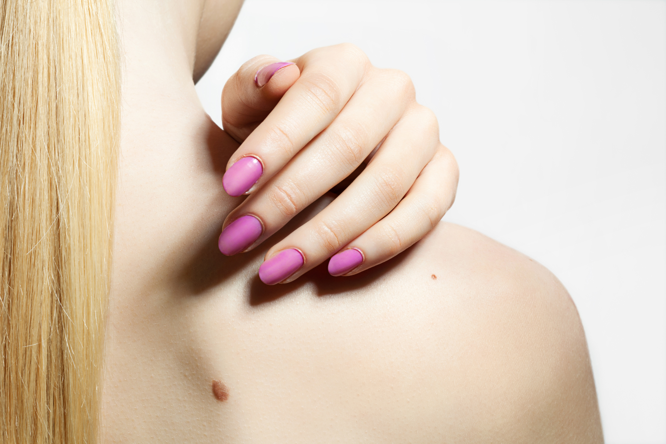 What Causes Moles on the Body? | LIVESTRONG.COM