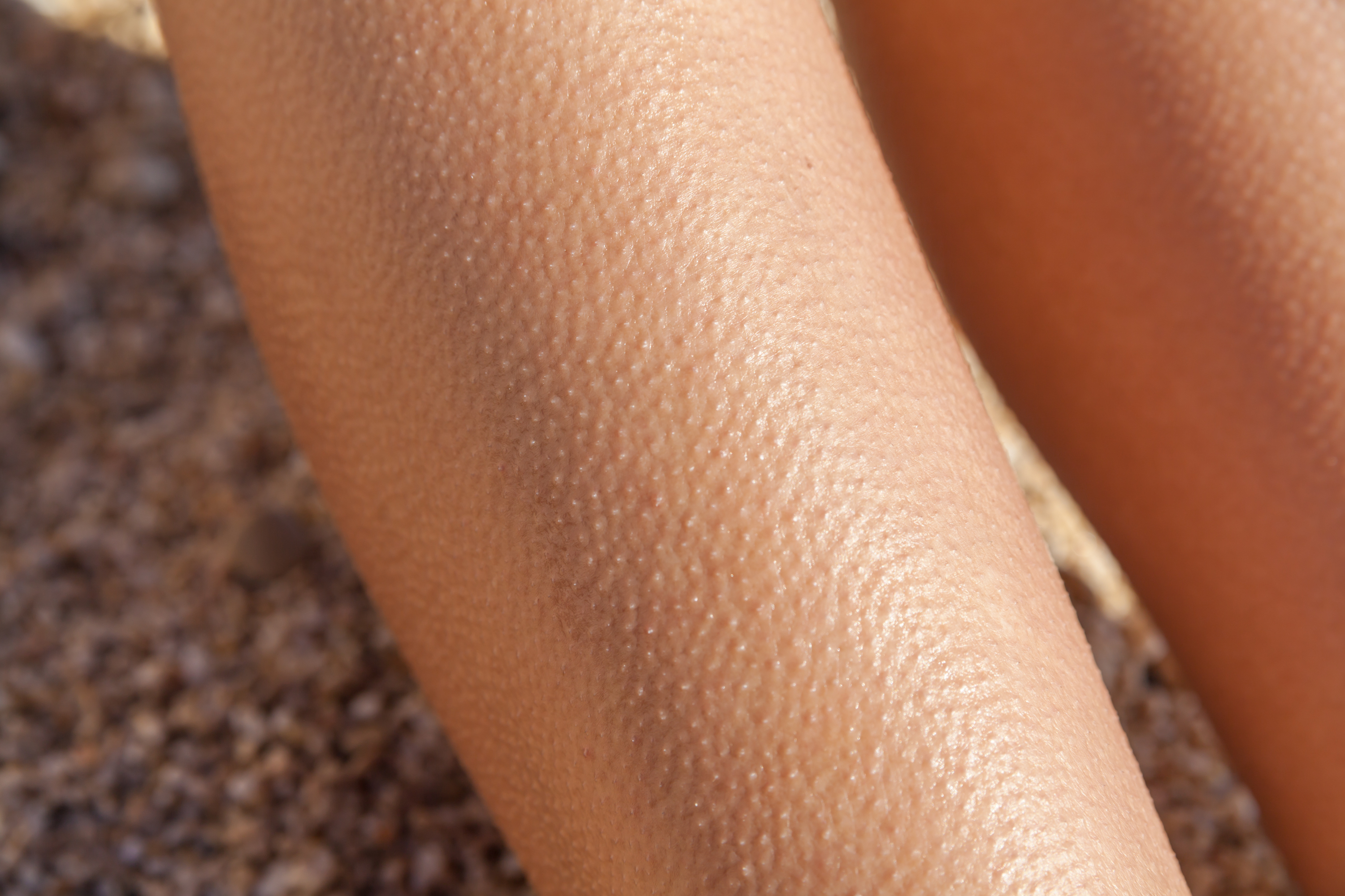 Goose Bumps: What Causes Them Goose Bumps: What Causes Them new foto