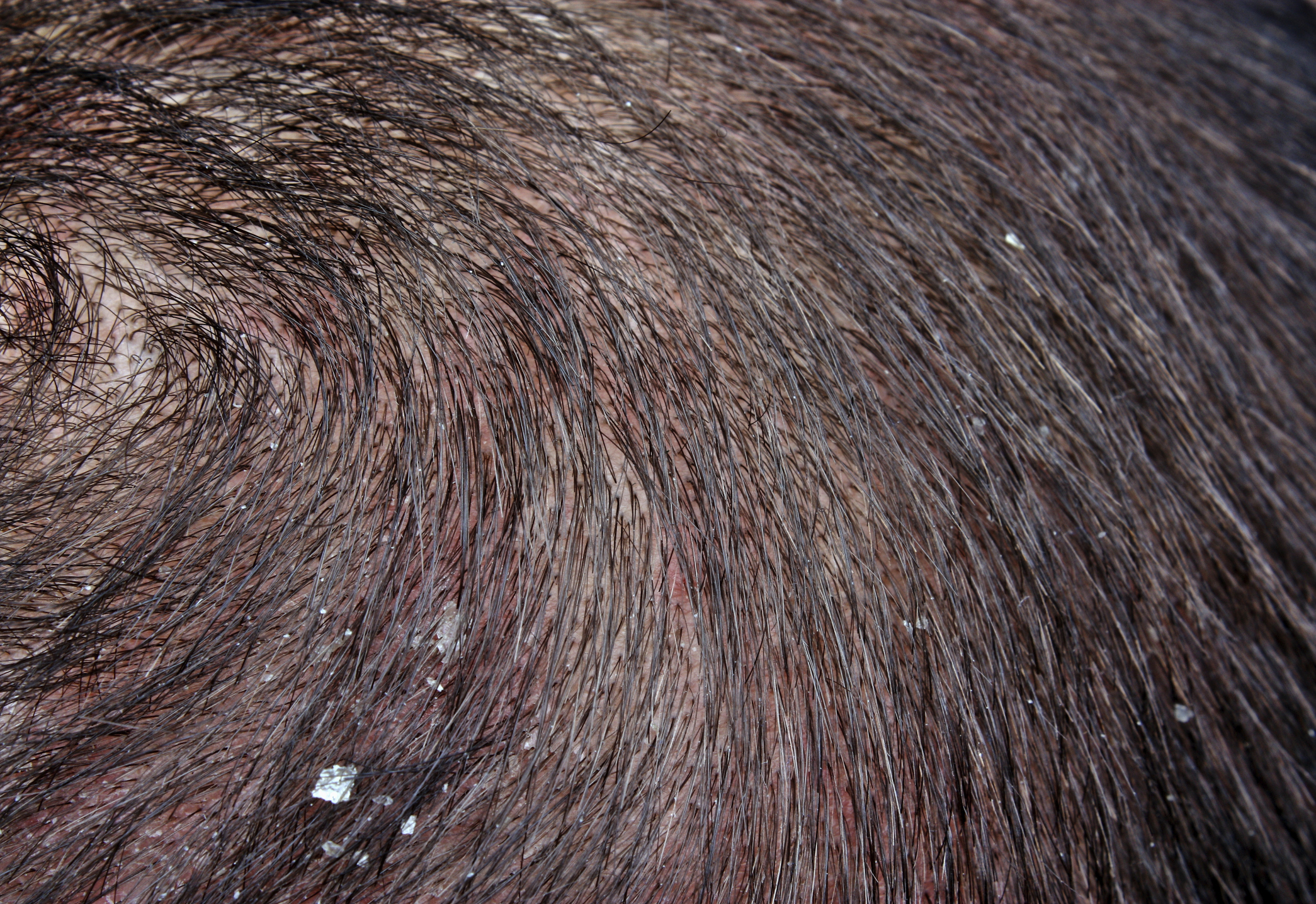 Chronic Dandruff Healthfully