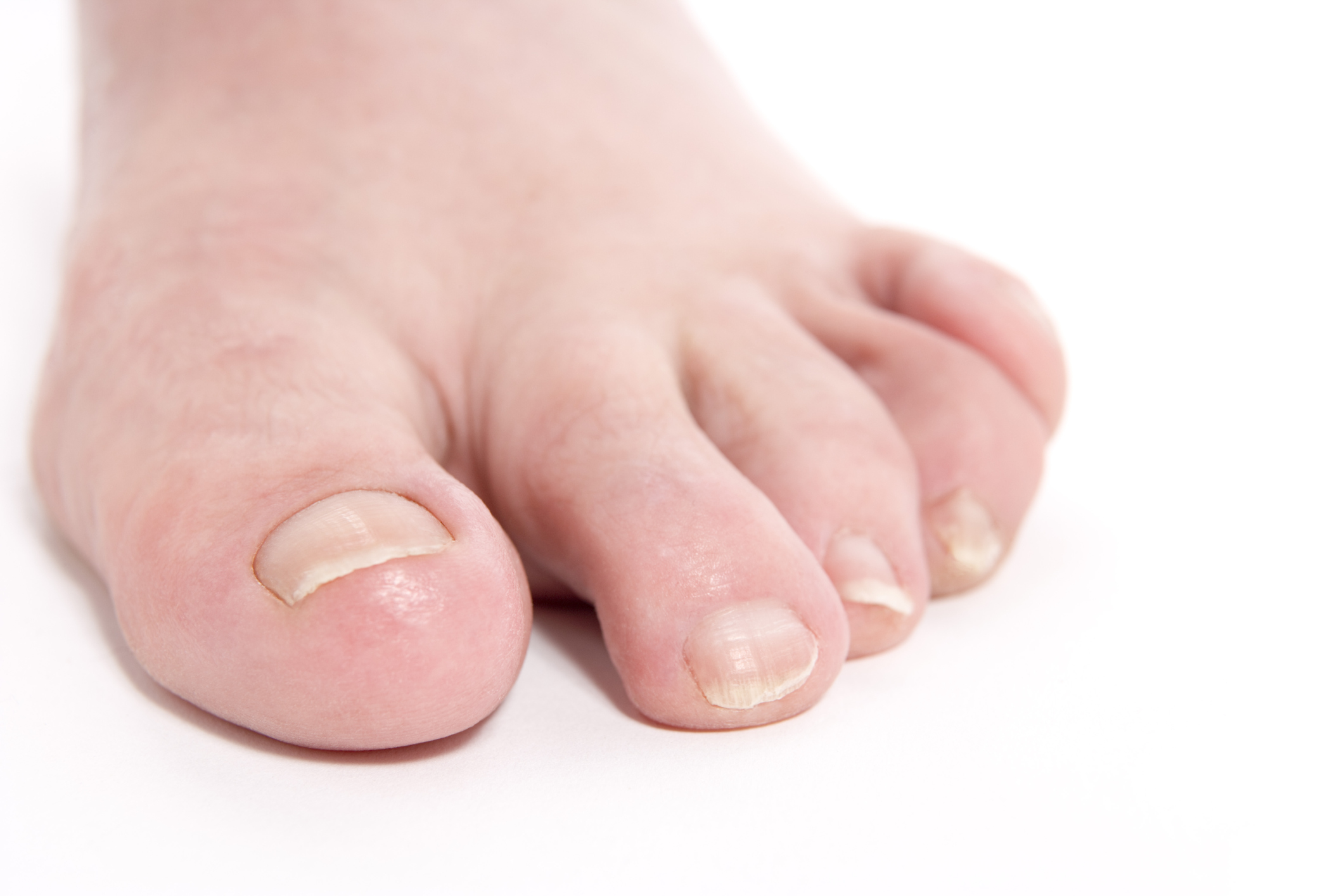 Signs of Infection From Stepping on a Nail