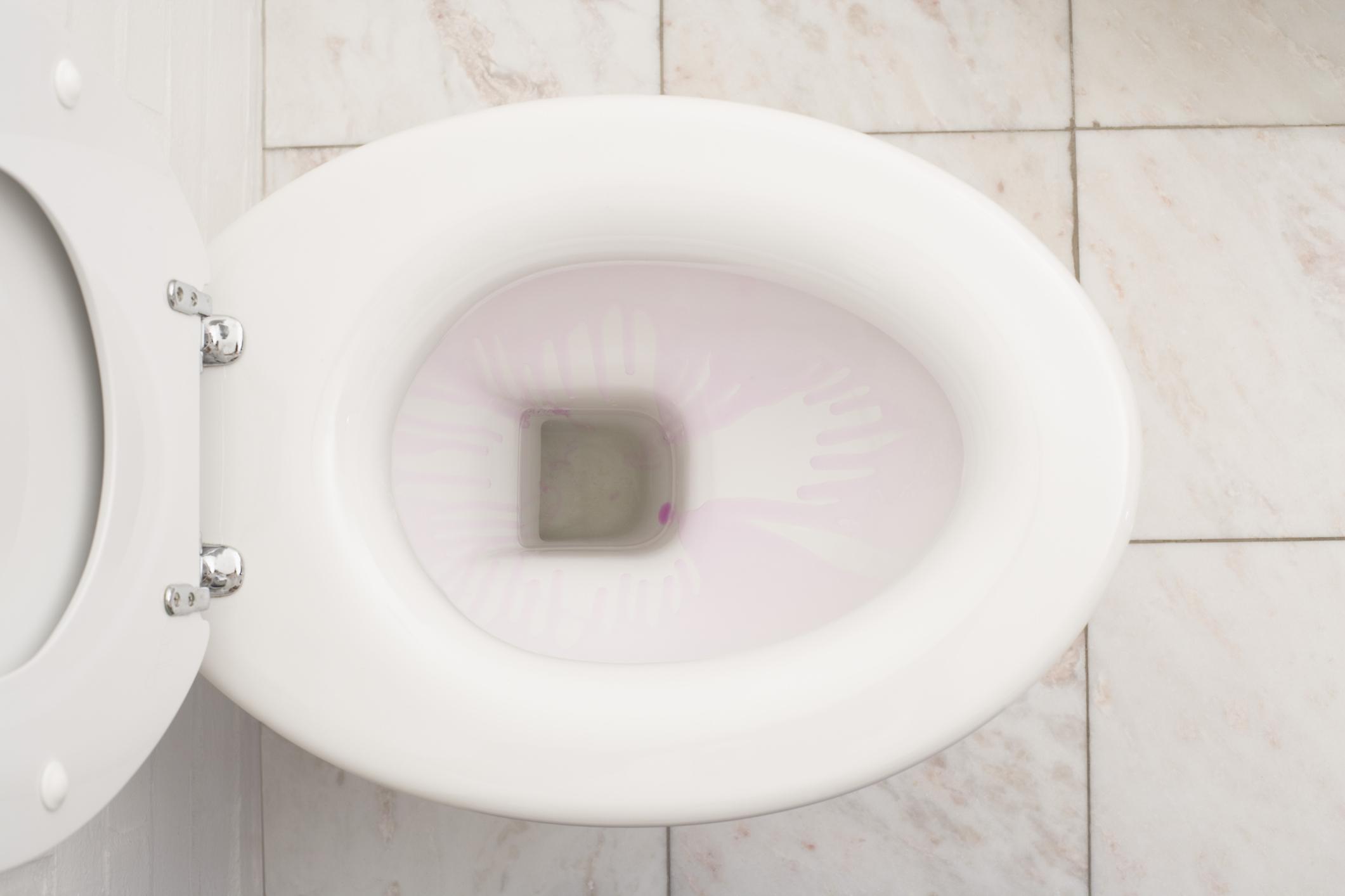 Cómo Arreglar La Base De Un Inodoro Que Tiene Fugas Cuando Se Tira La Cadena