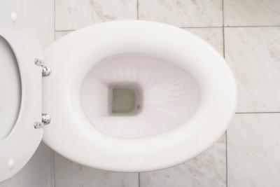 How Do You Remove Black Spots In A Toilet Bowl Home