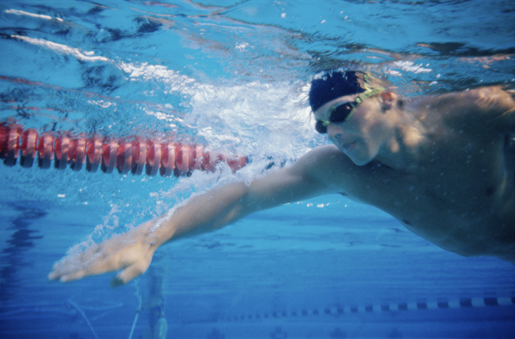 Should You Swim in a Pool with an Open Abrasion?