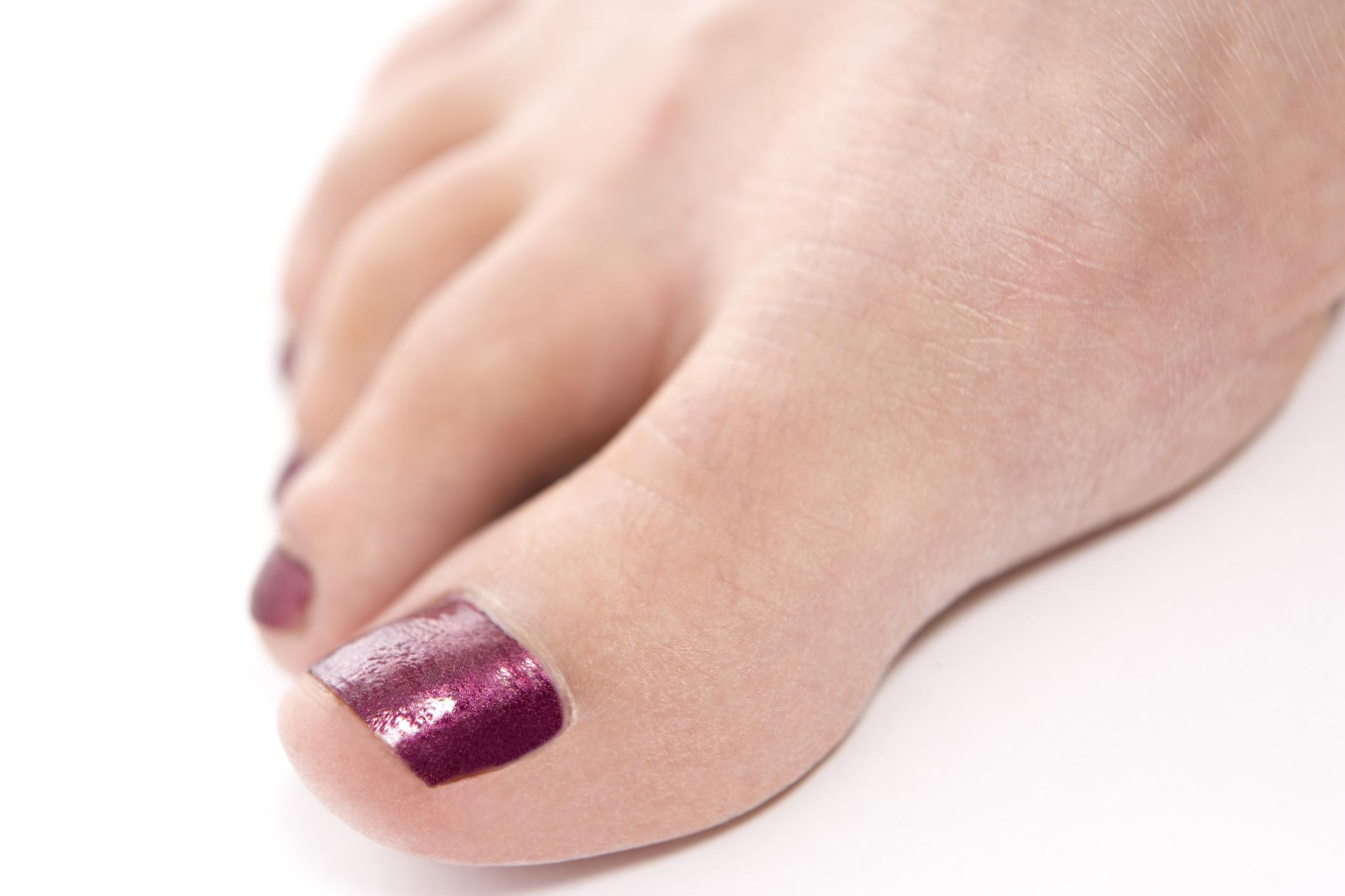 Qué color de esmalte de uñas usar con un vestido amarillo y zapatos ...