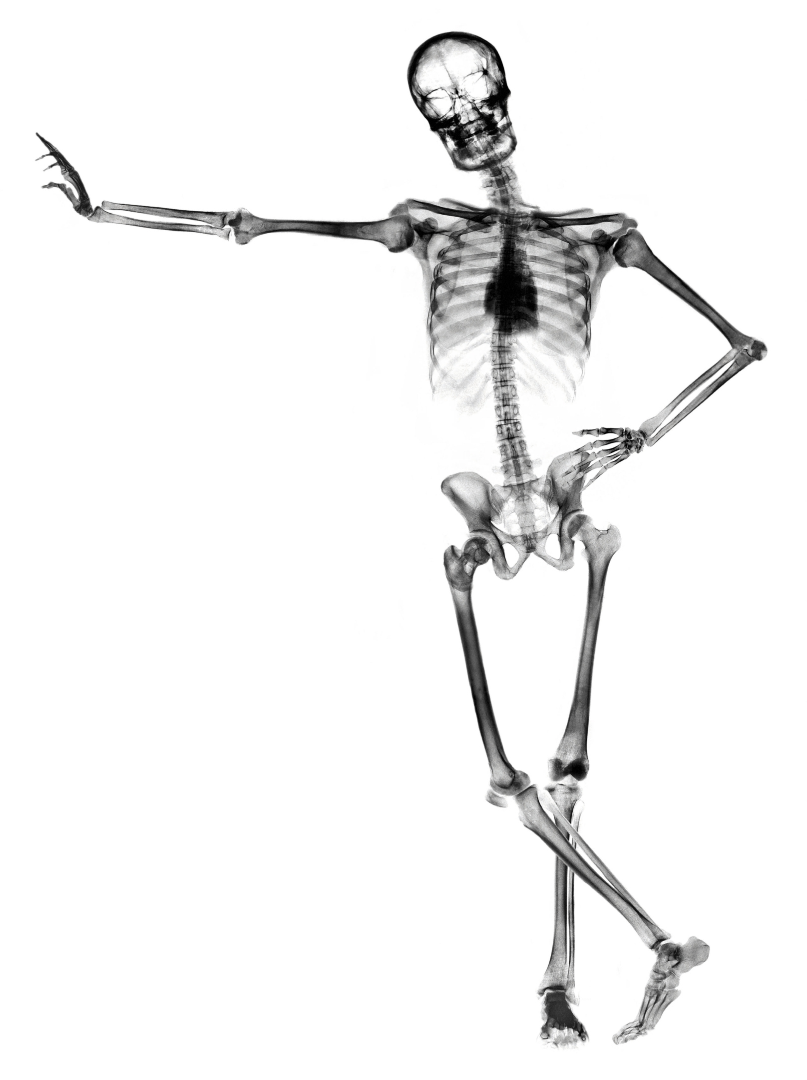 The Number Of Bones In A Childs Body Livestrong