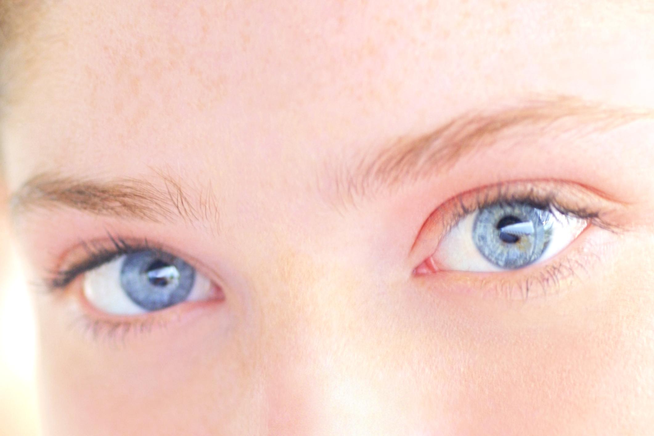 White Line on Nose in Children