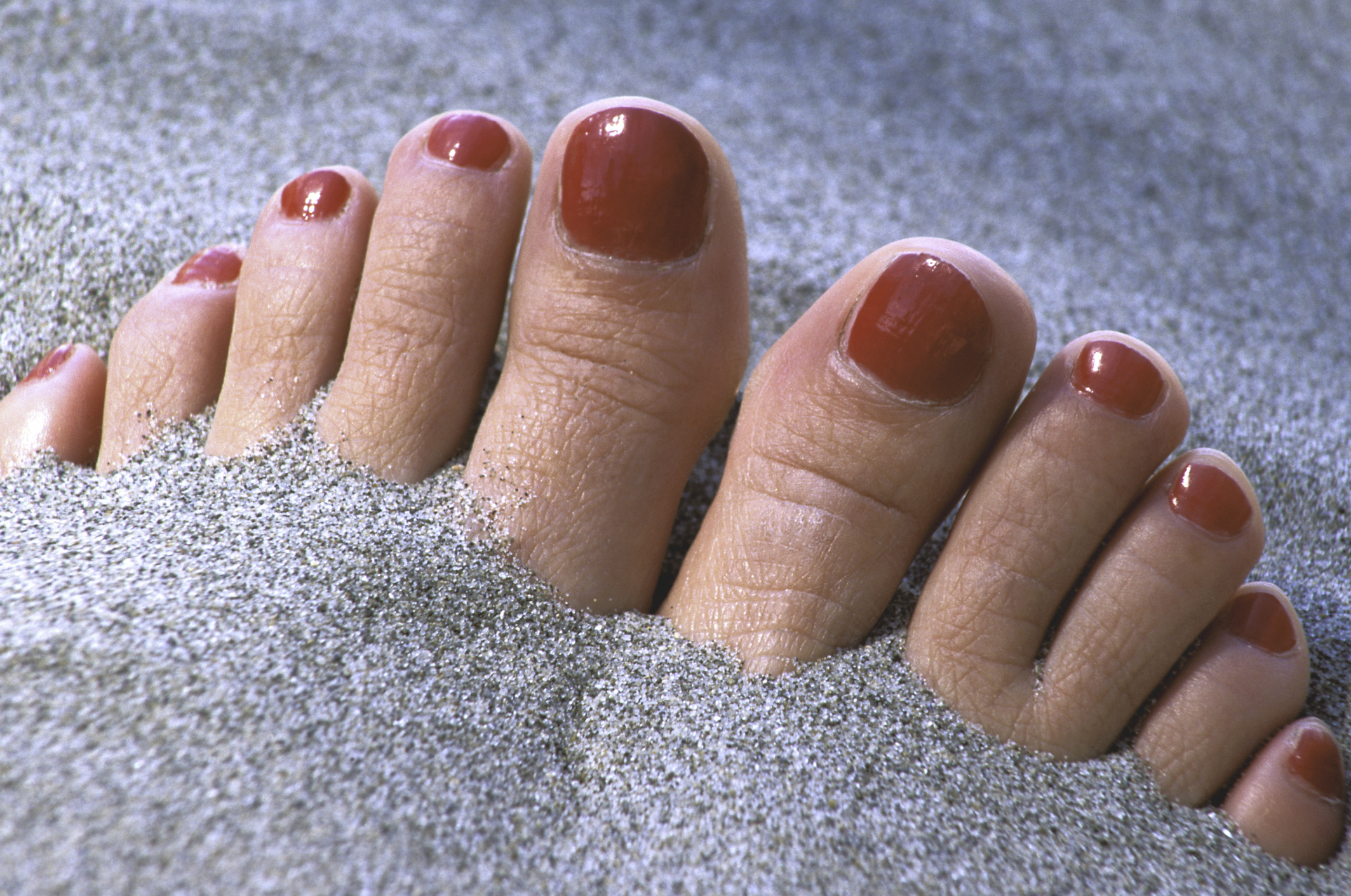 Baking Soda Treatments for Toe Nail Fungus | LIVESTRONG.COM