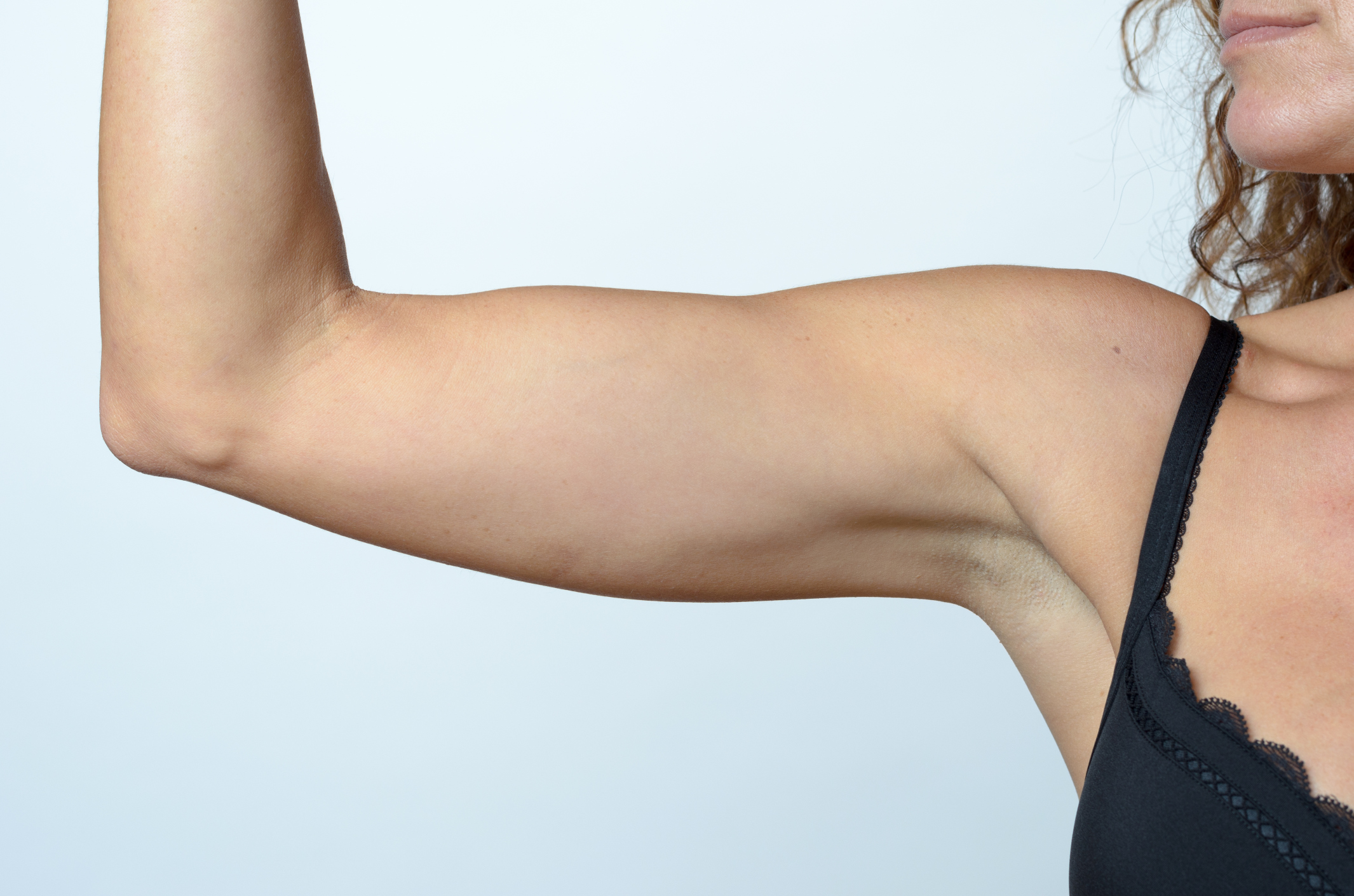 How to Gain Fat on the Arms photo