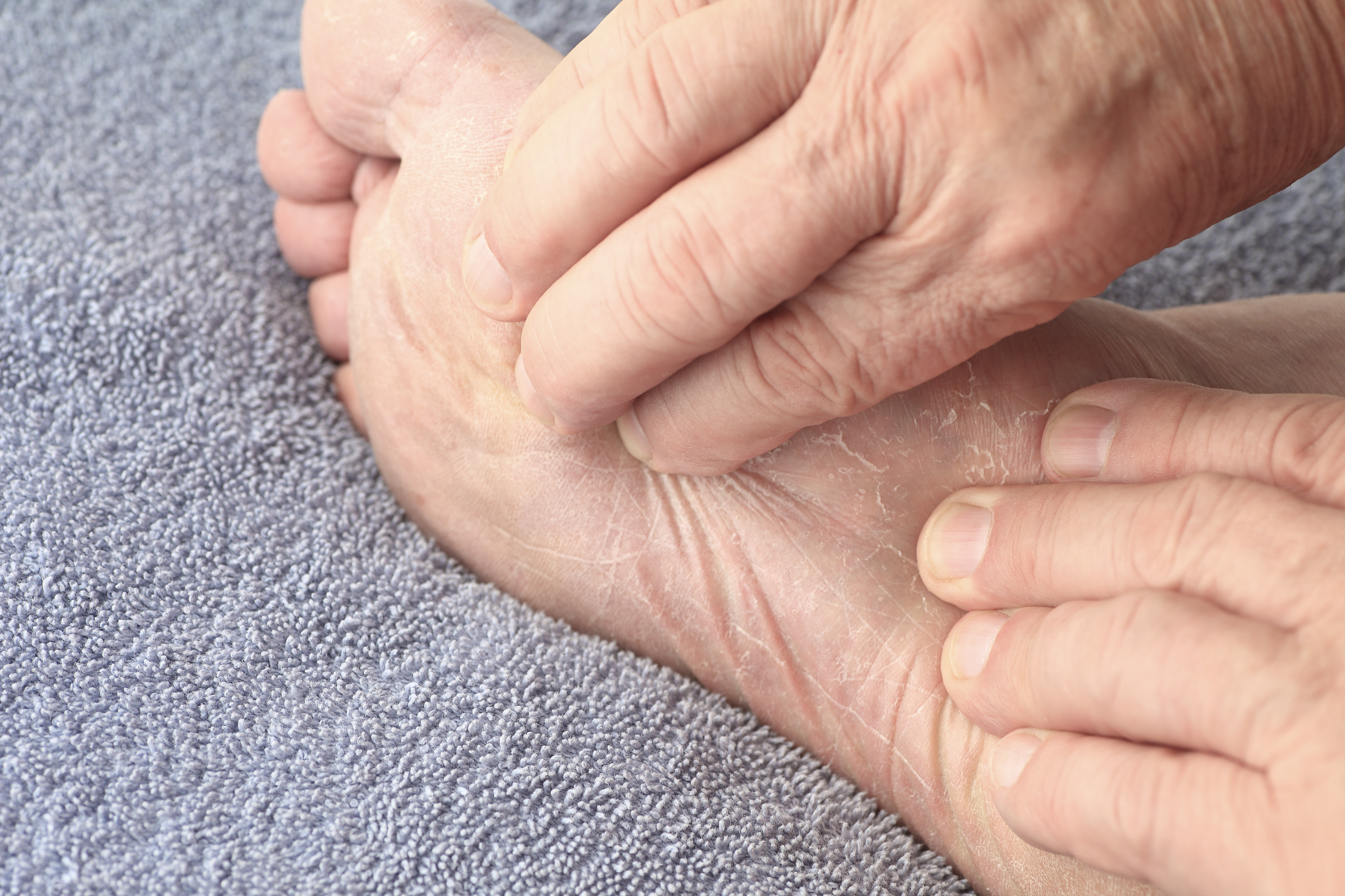 Cellulitis on the feet: how to get rid 54