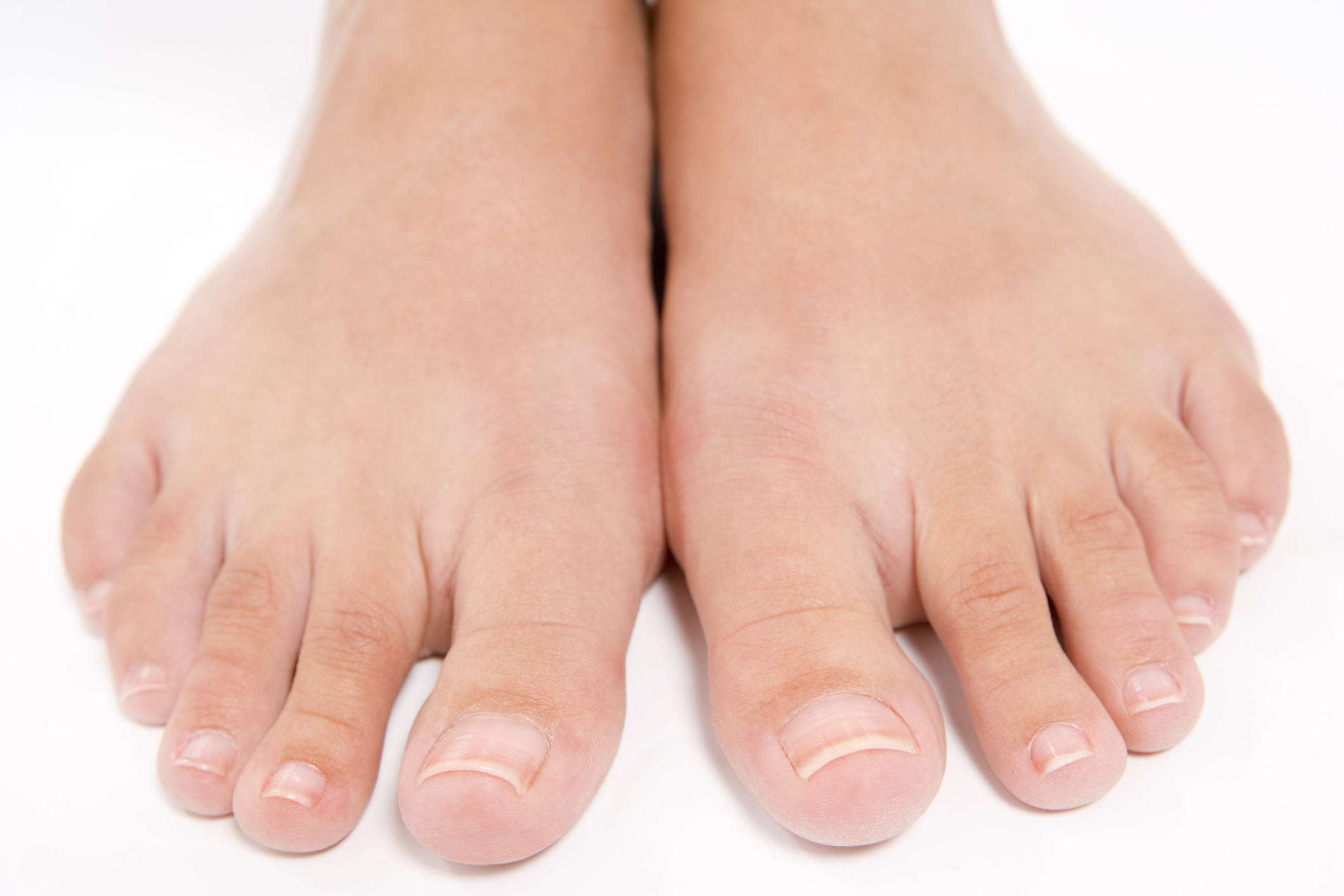 How to Get Rid of Thick Skin Under the Toenails | LIVESTRONG.COM
