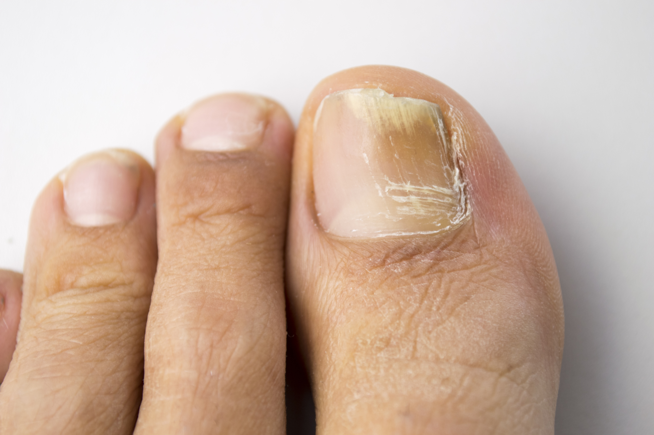 Home Remedies With Bleach for Toenail Fungus | LIVESTRONG.COM