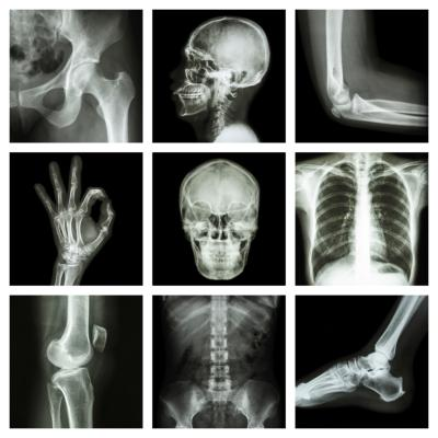 How Many People Have A Career In Radiology Chron Com