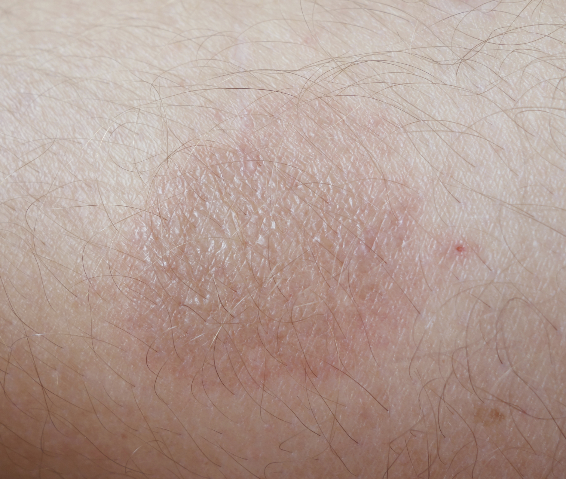 How To Treat Burns From Cream Hair Removers