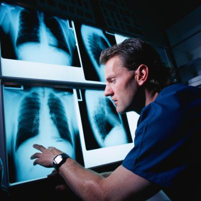 Salary Of Radiology Practitioners | Chron.Com