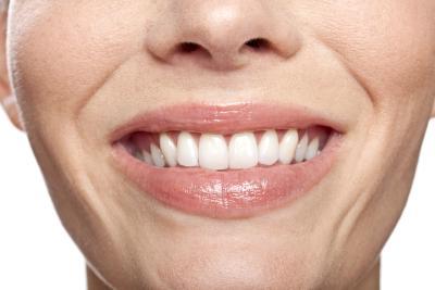 Kenapa berbelanja lebih untuk dapatkan gigi putih berseri ?