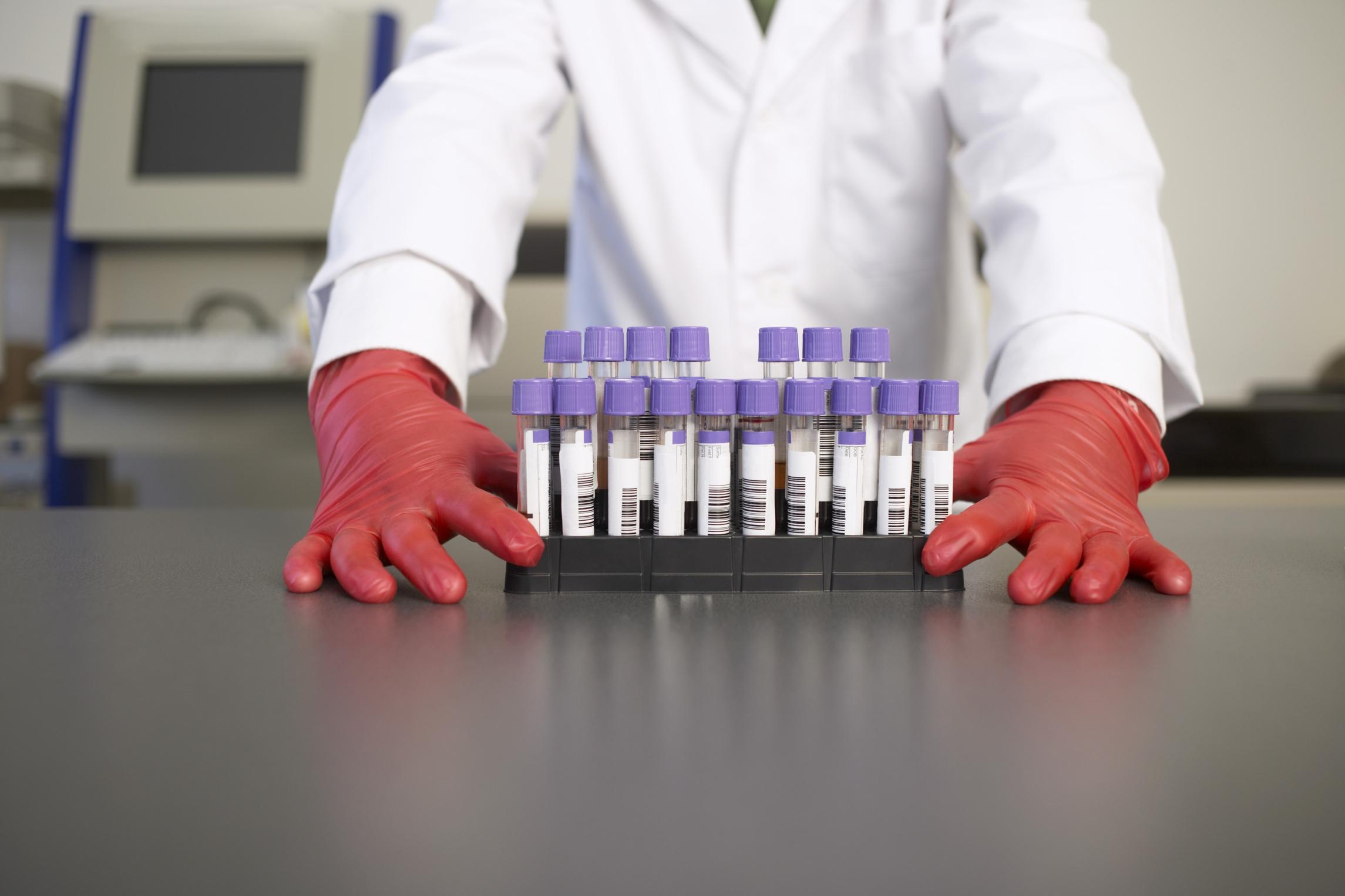 que te eleva el acido urico el calamar es malo para el acido urico como se pueden bajar los niveles del acido urico
