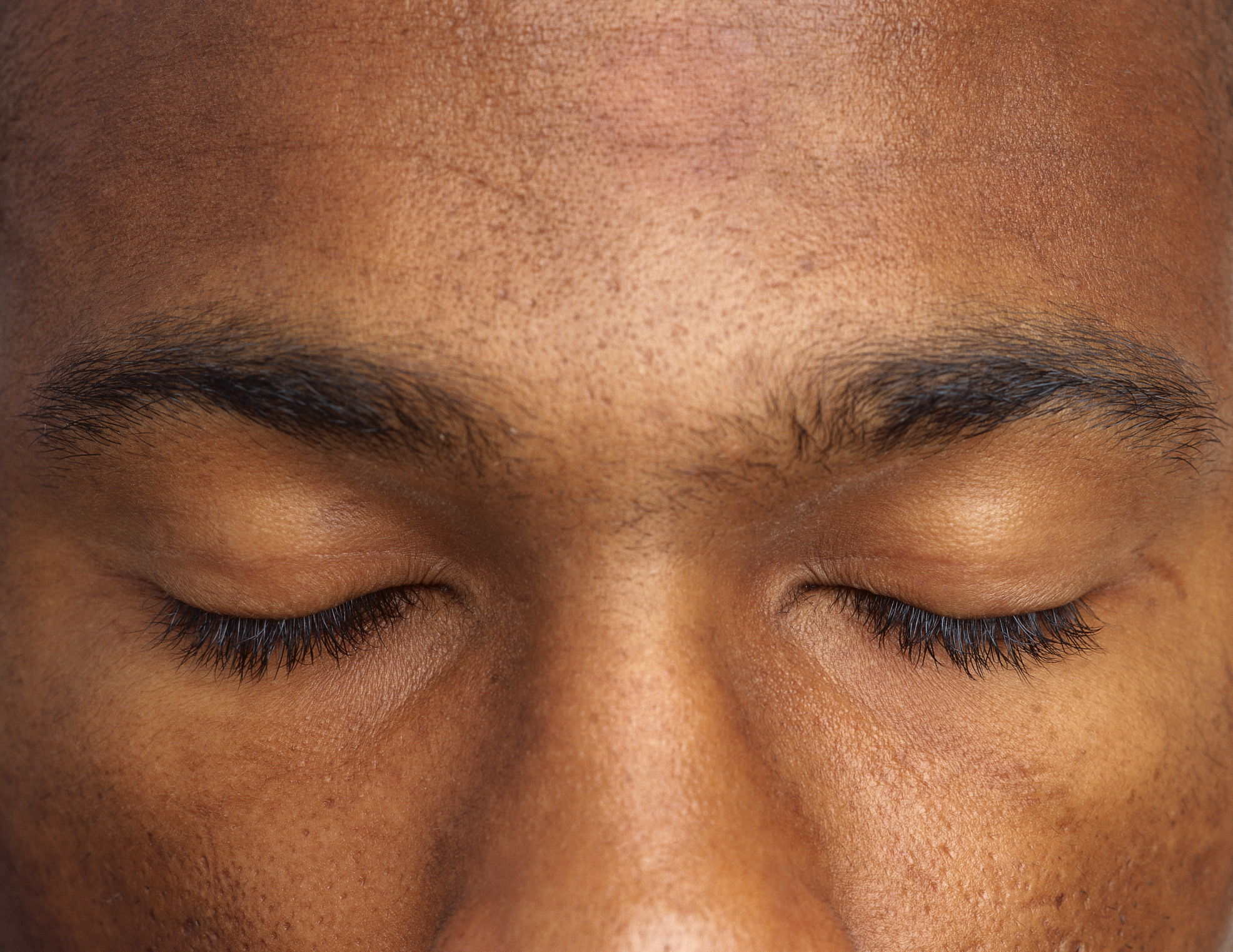 Eyebrow Hair Loss And Stress Livestrong