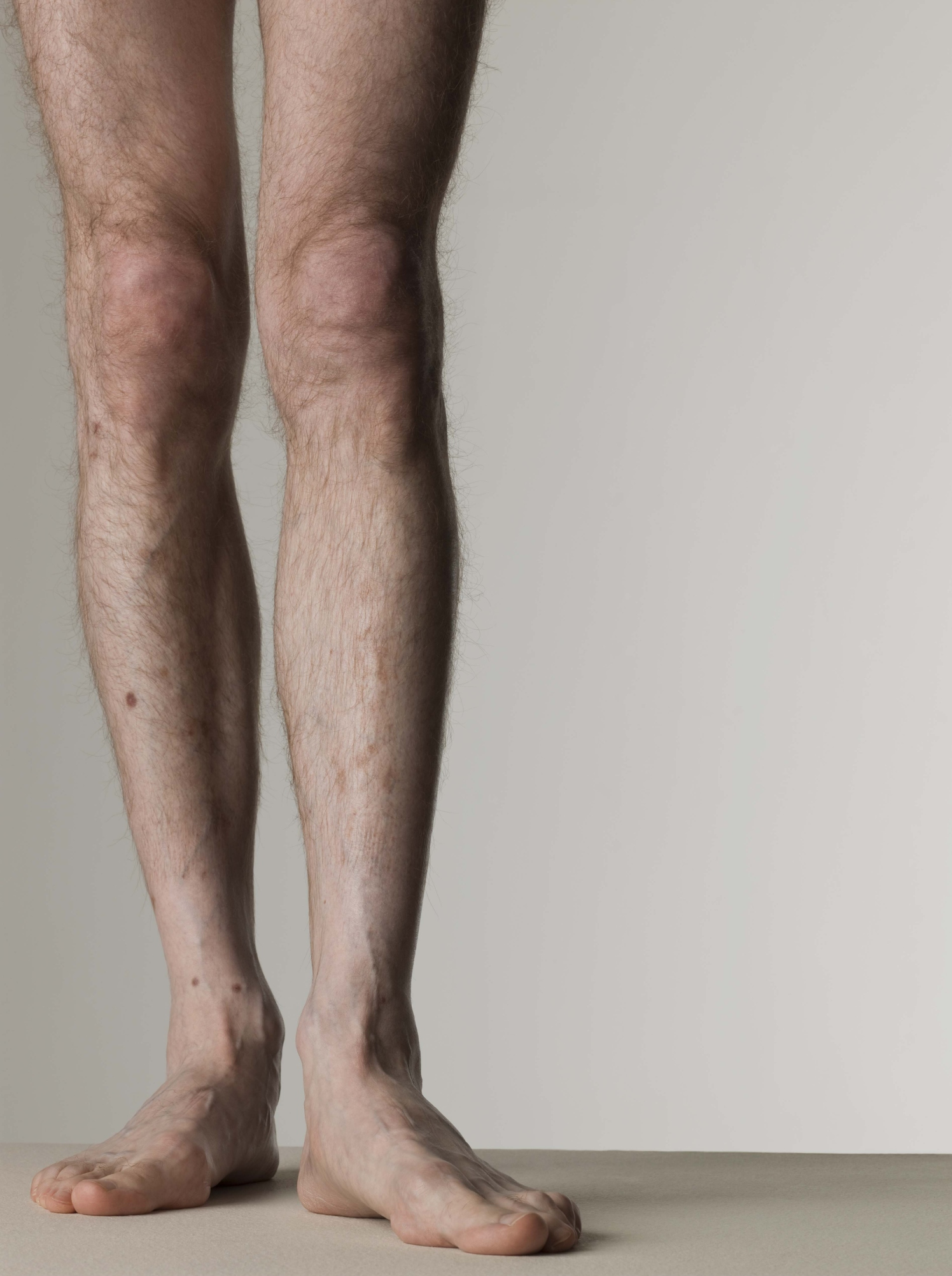 Genetics and overall health determine the prevalence of leg hair.