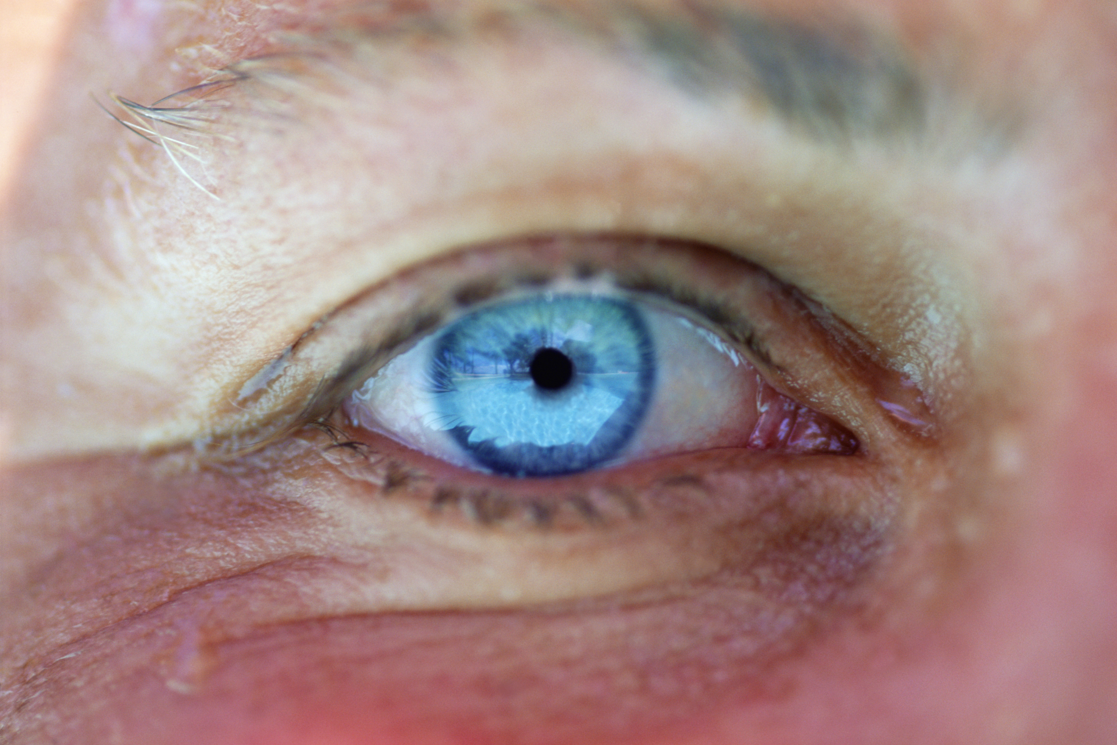 Hypercalcemia is associated with changes in the cornea rather than posterior vitreous detachment.