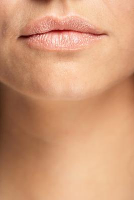 Las arrugas sobre las mejillas y alrededor de la boca