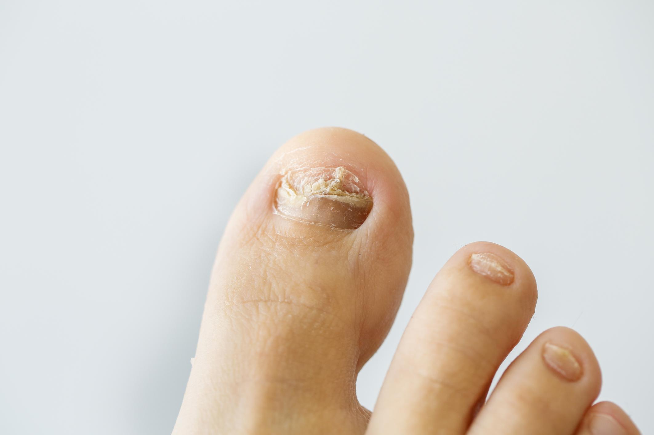 Home Remedy to Kill Nail Fungus | LIVESTRONG.COM