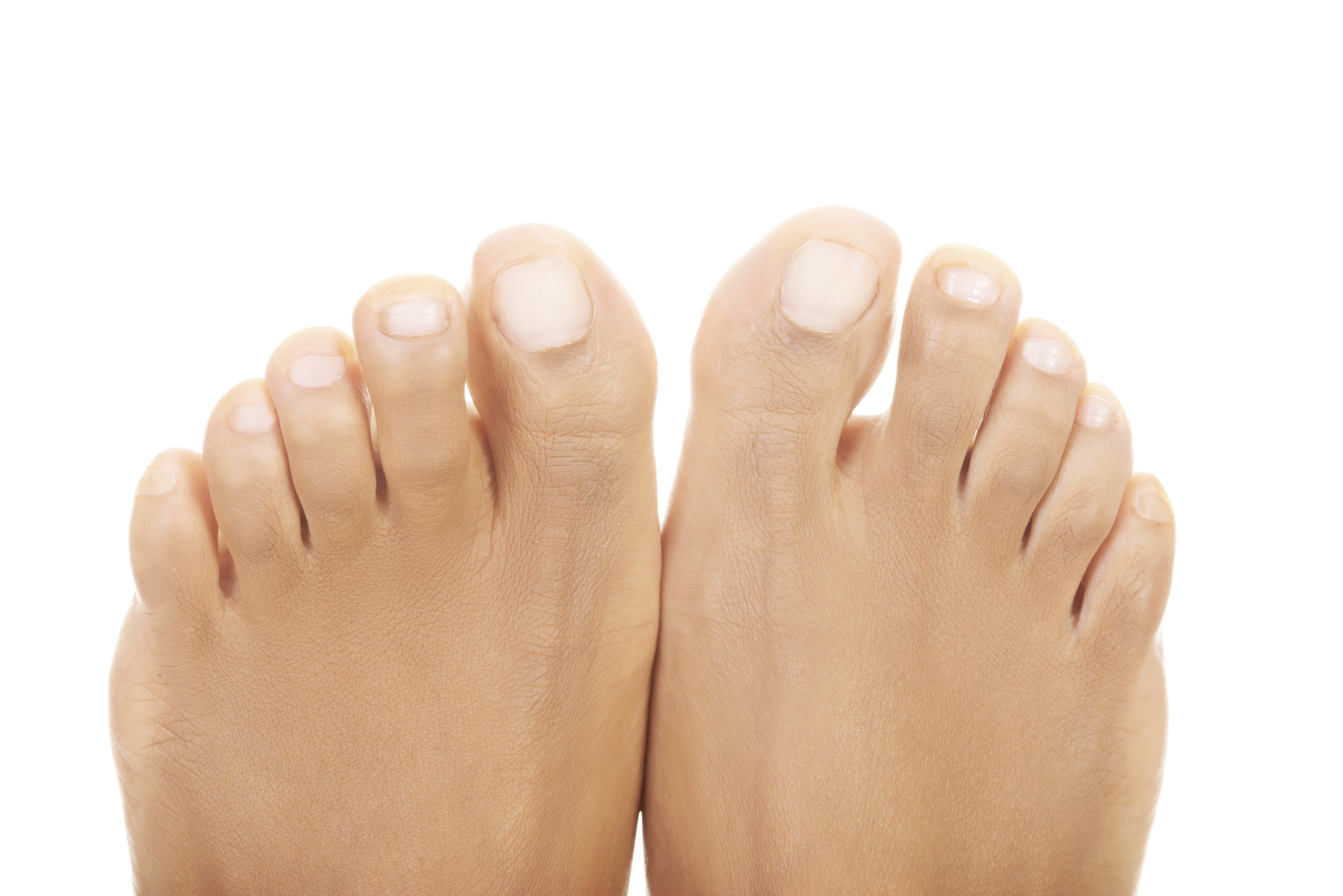 How to Cure Yellow, Thick Nails | LIVESTRONG.COM